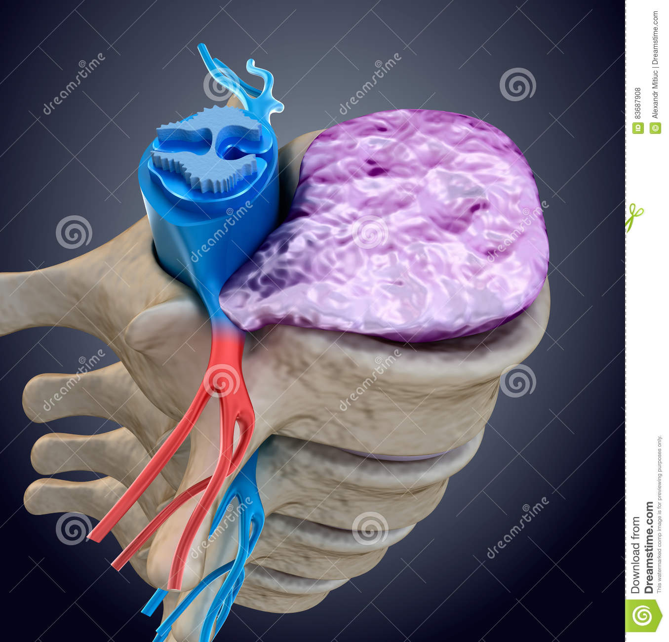 Spinal cord under pressure of bulging disc. Medically accurate illustration