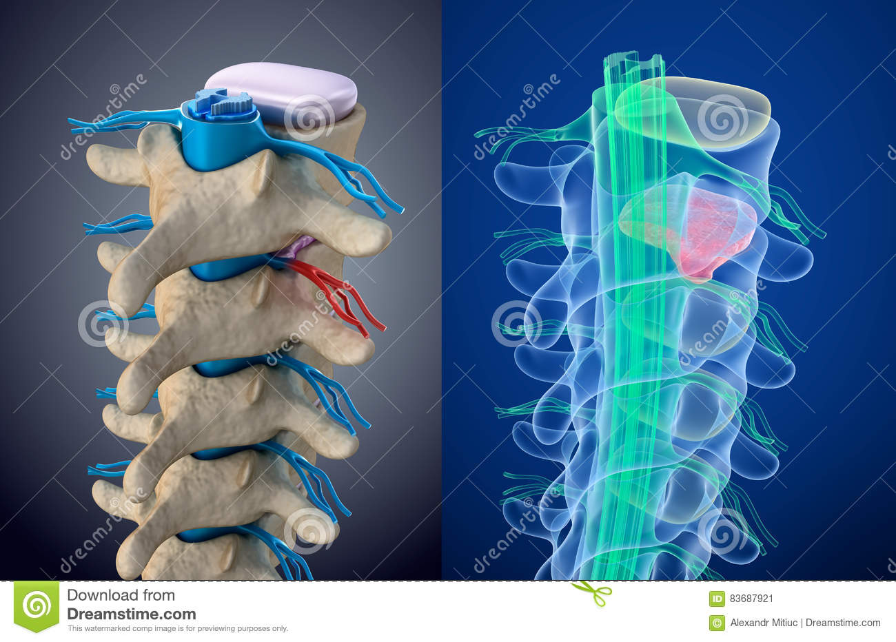 Spinal cord under pressure of bulging disc. Xray view. Medically accurate illustration
