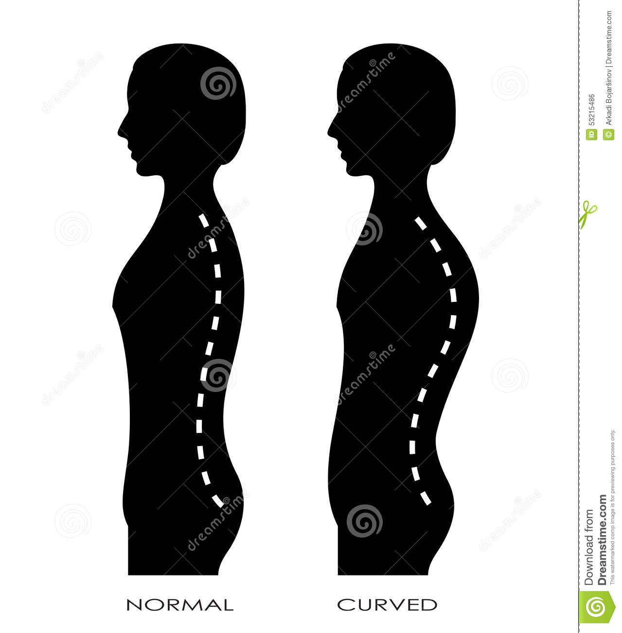 Spinal curvature stock vector  Illustration of plan, curving - 53215486