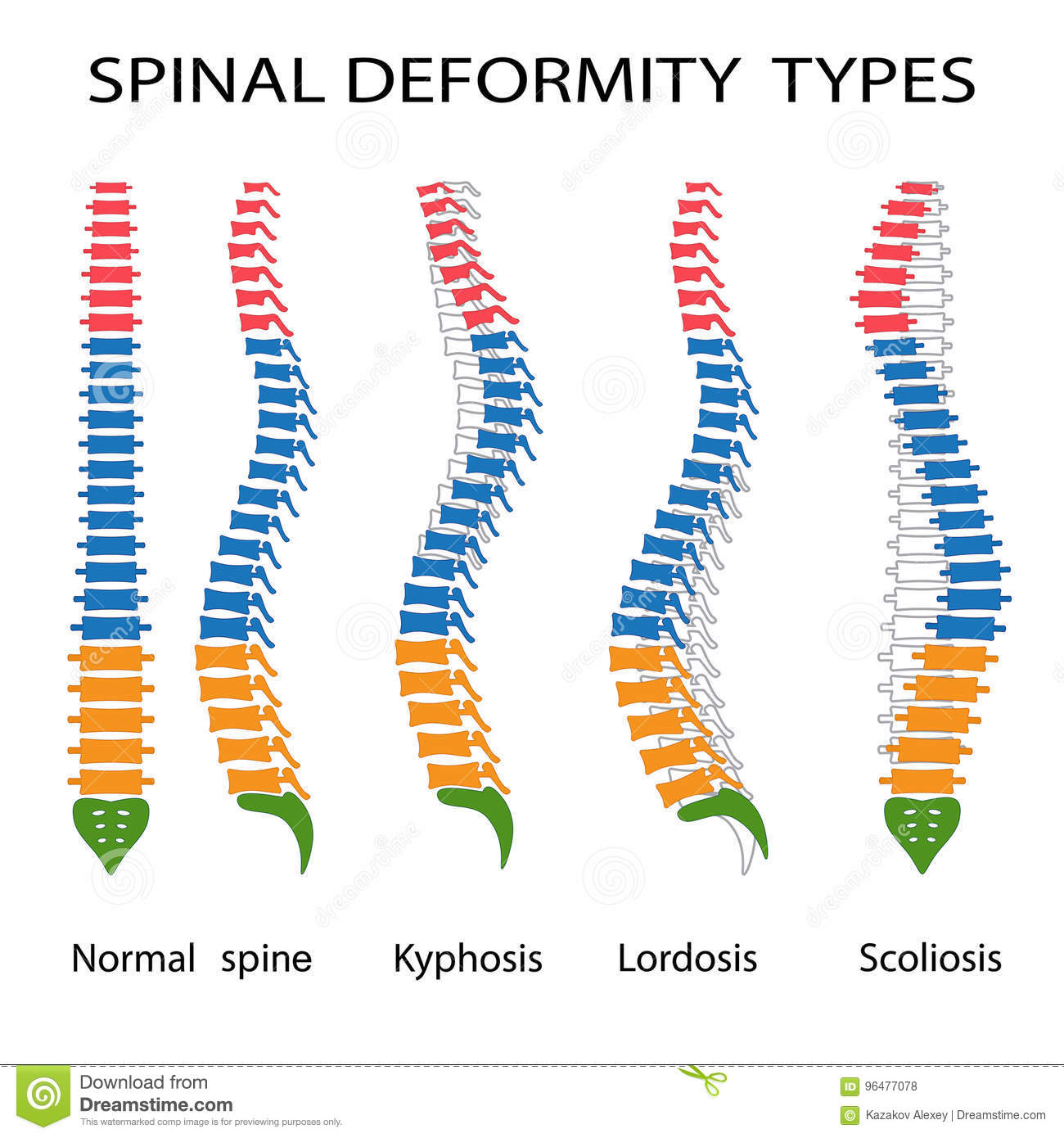 Spinal Stock Illustrations 6 489 Spinal Stock