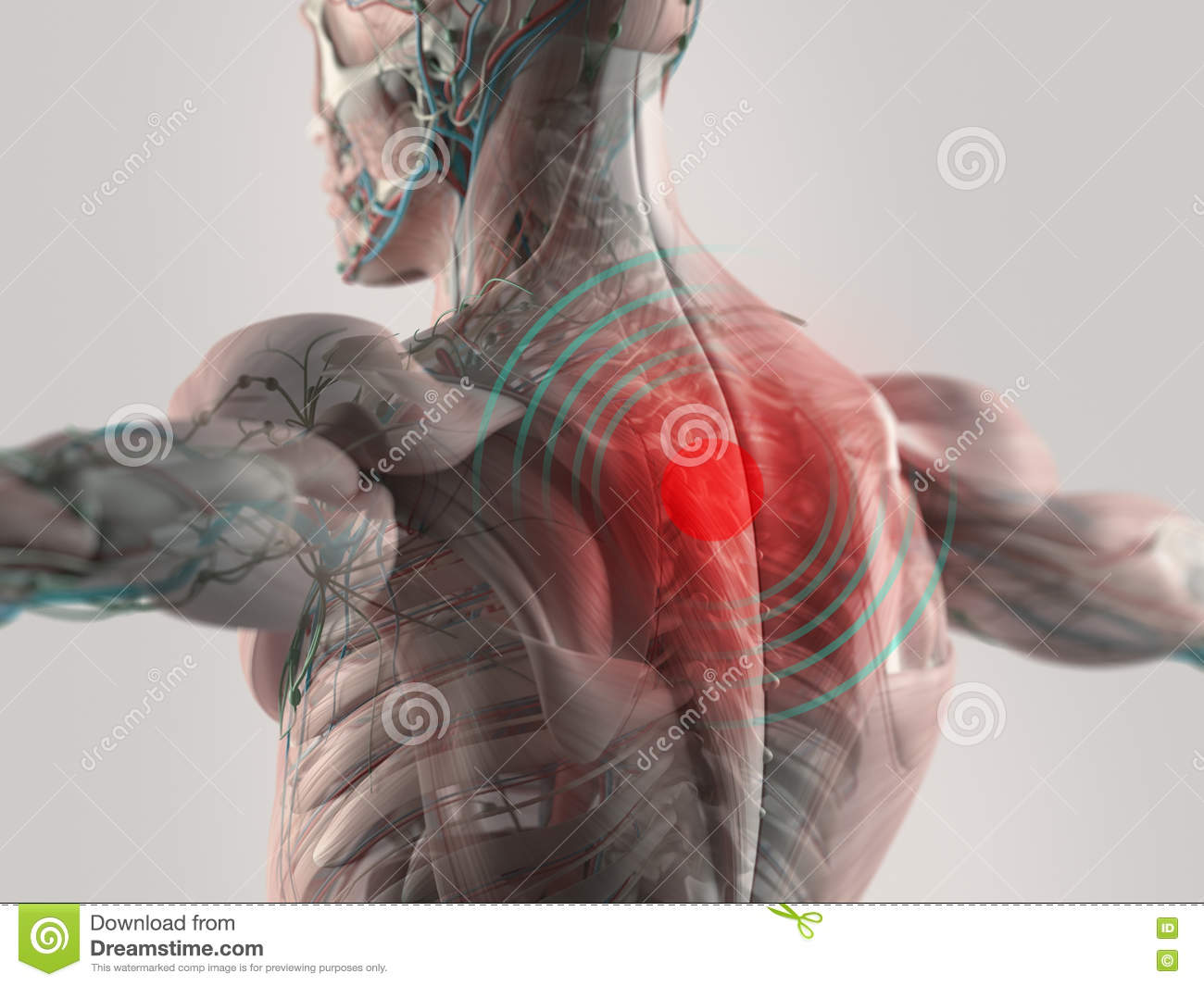 Spine muscle pain stock photo. Image of painful, tissue - 67627036