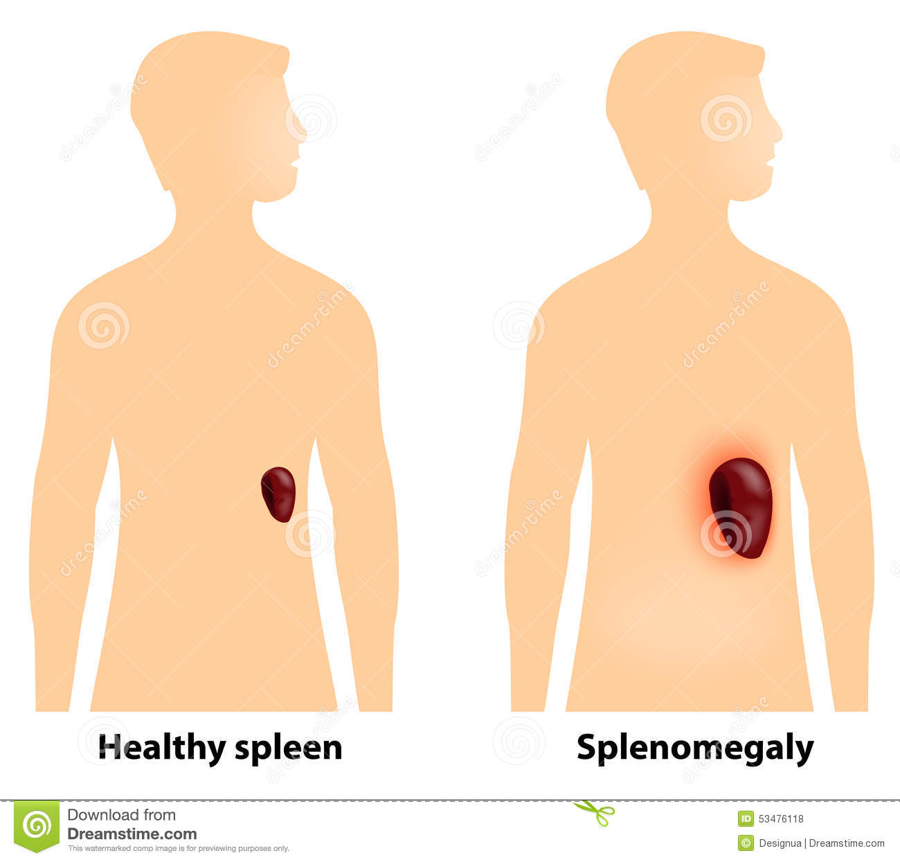 splenomegaly or enlarged spleen stock vector - image: 53476118, Skeleton