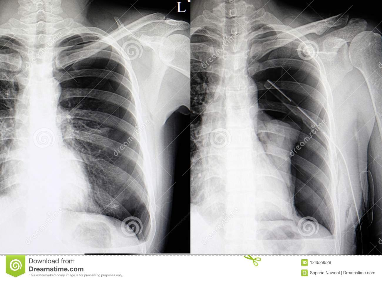 Spontaneous Pneumothorax Chest Film Stock Image Image Of Anatomy