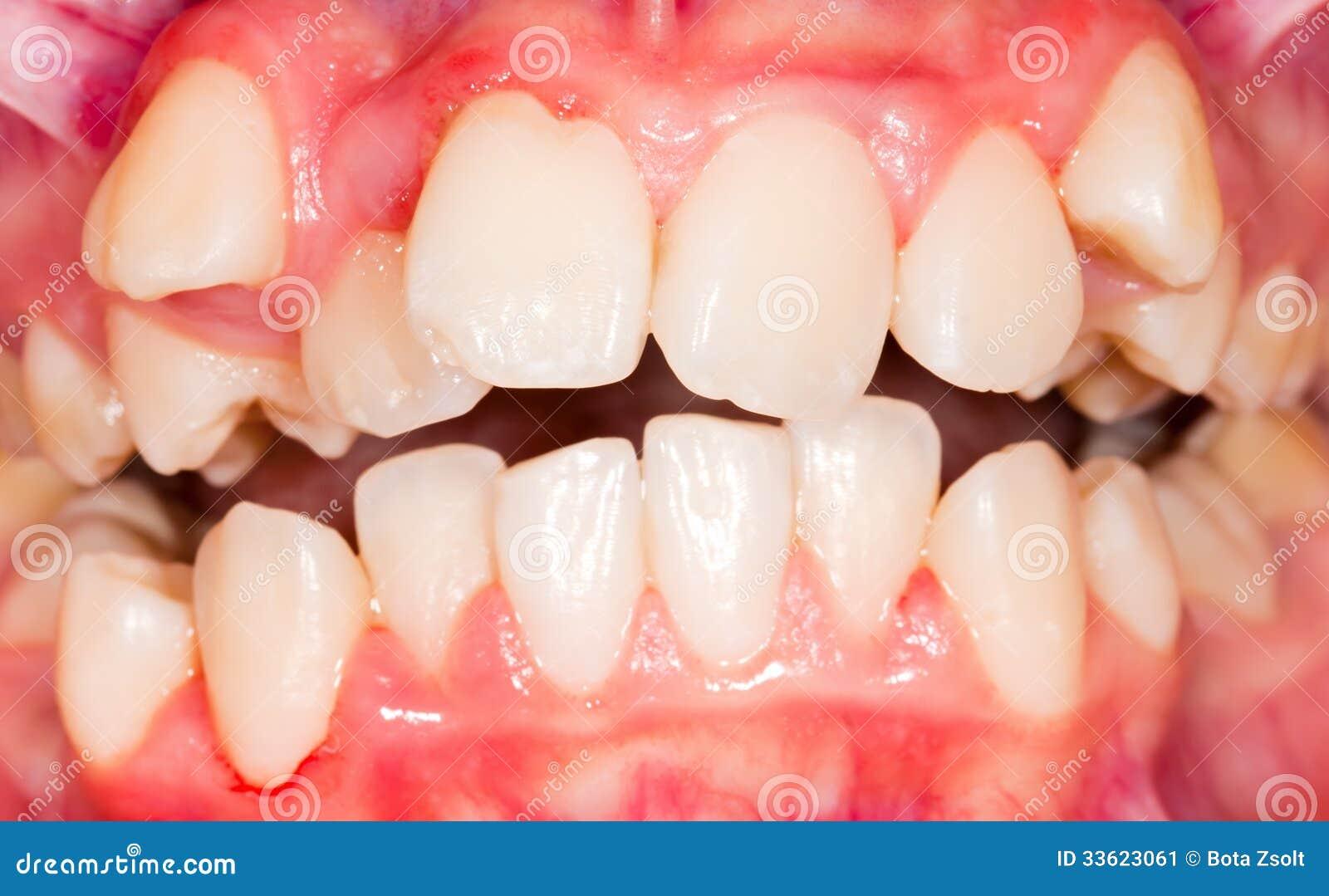 Spostamento dentario