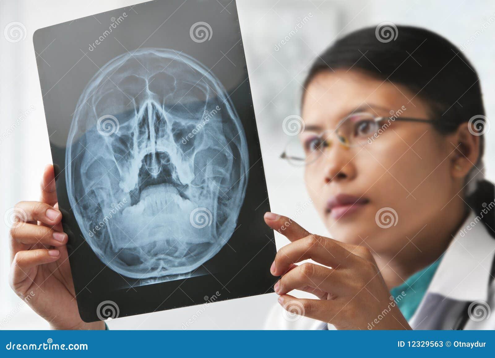 Sprawdzać wizerunku doktorskiego żeńskiego xray