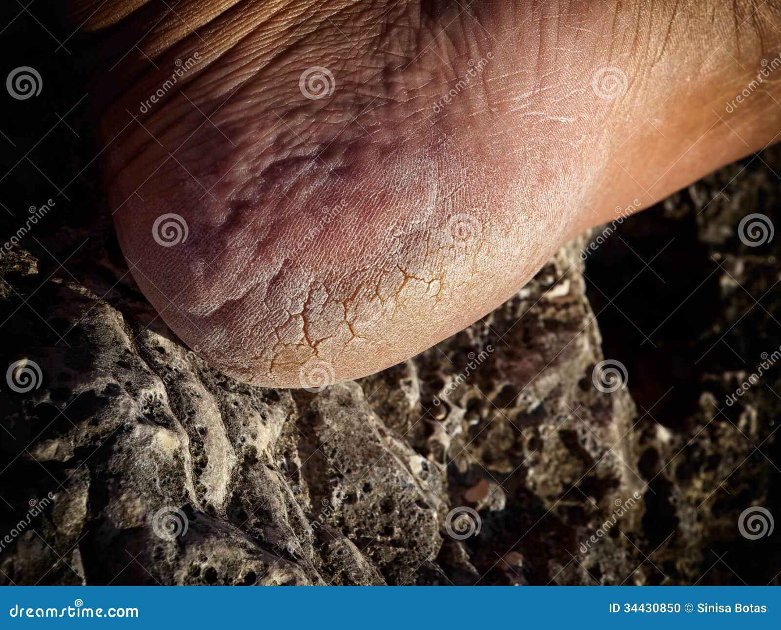 sprickor i hälen svamp