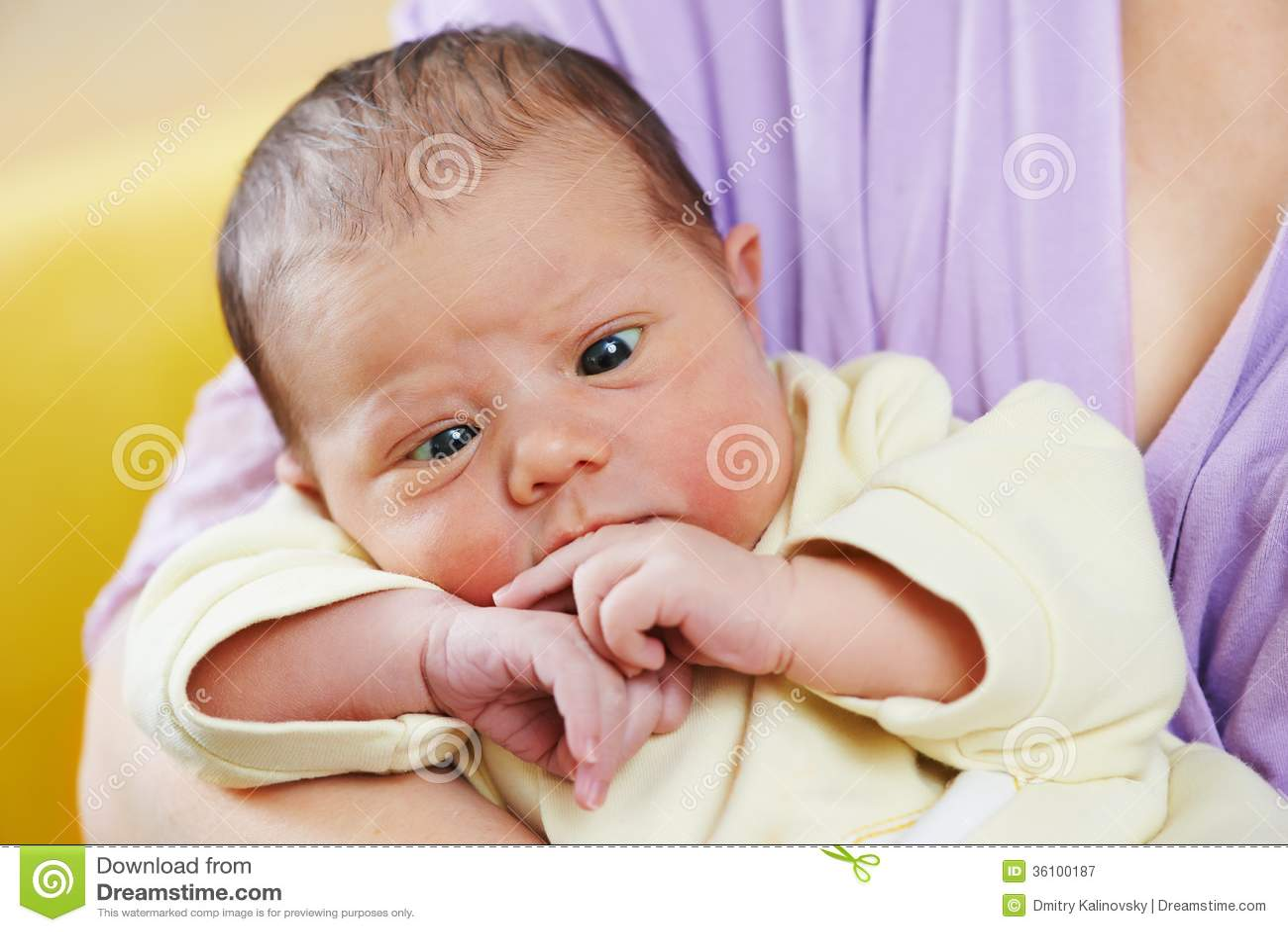 Squint of newborn baby
