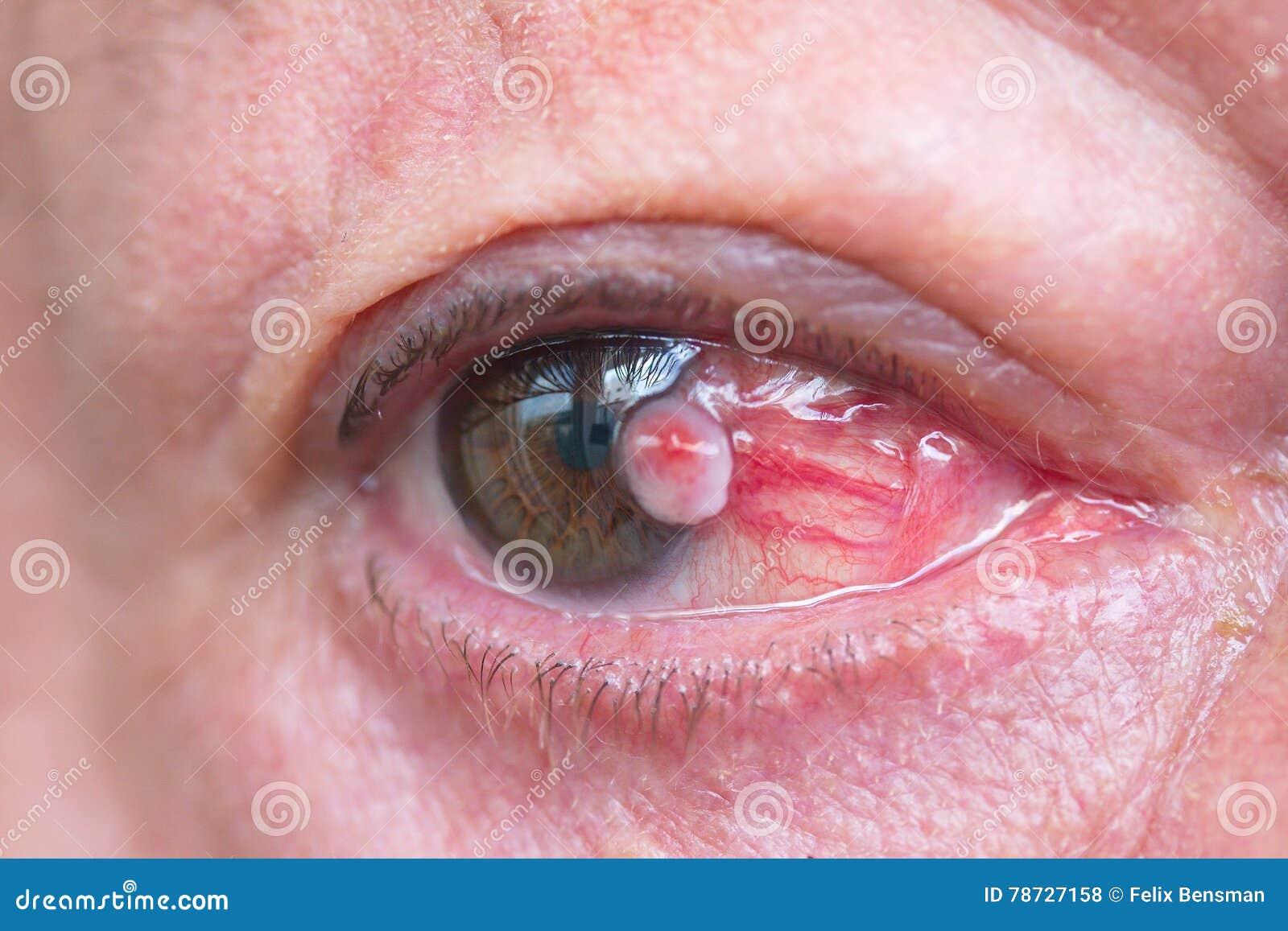 Stäng sig upp av carcinomaen för den squamous cellen för conjunctivaen
