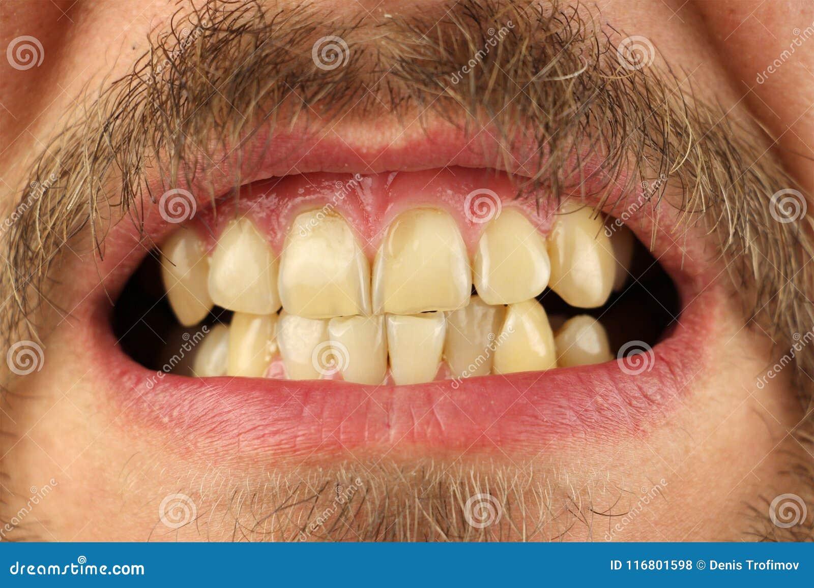 Stängda mänskliga tänder grinar, makroen