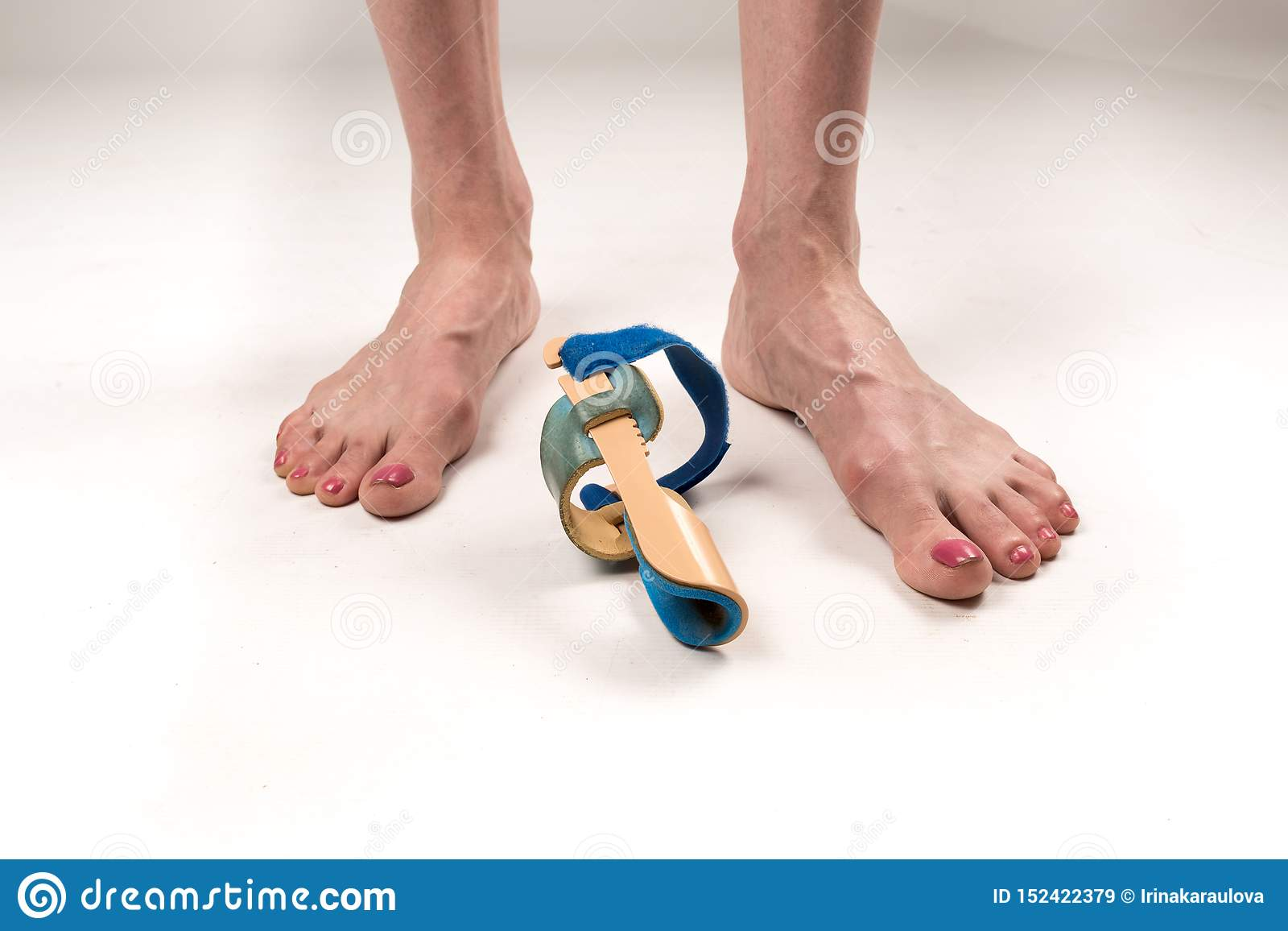 Stabilizing orthosis for the correction of the big toe on the woman legs when hallux valgus, 2 legs, close-up isolated, white