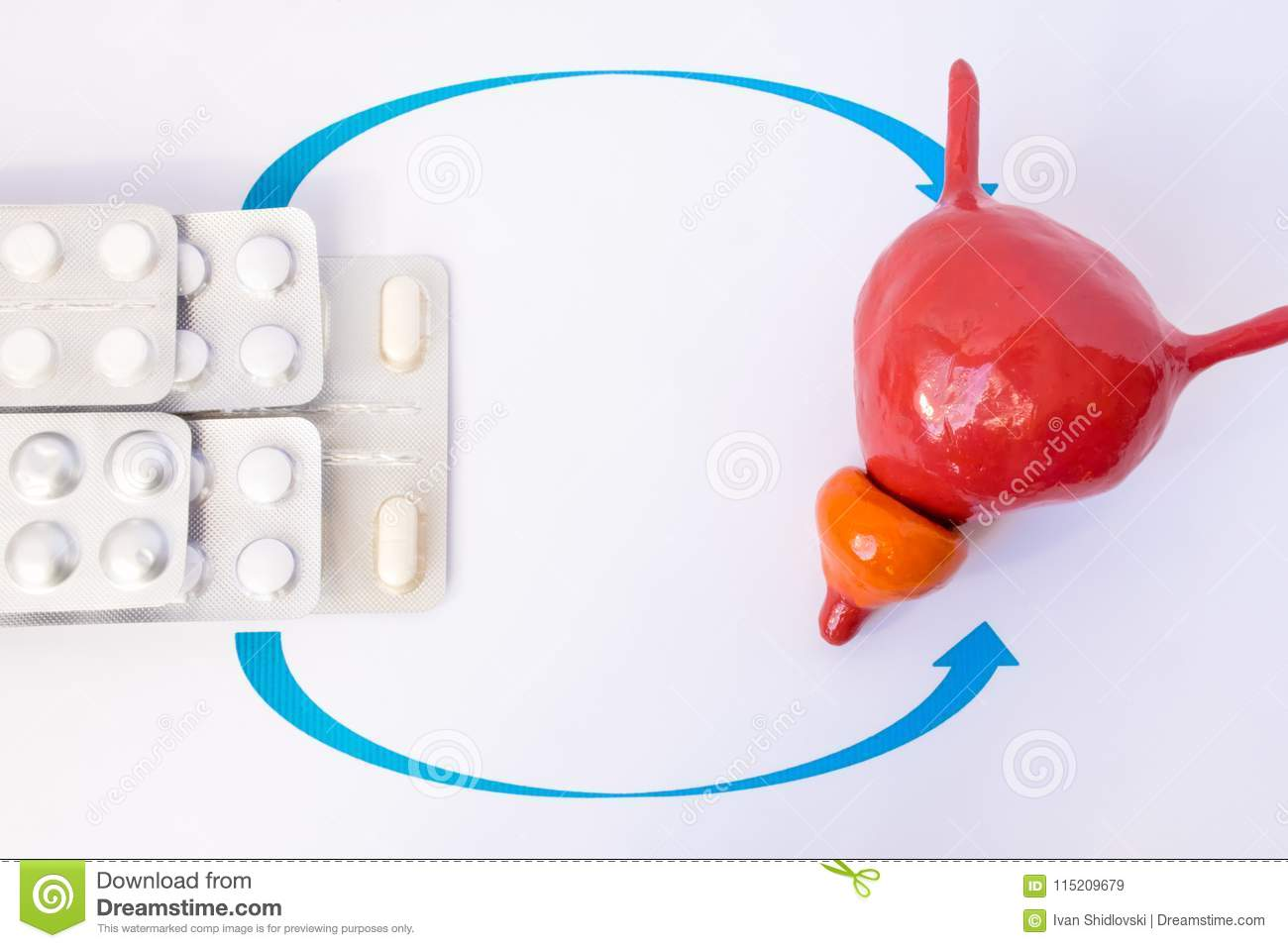 Stack of blisters with tablets or pill indicated by arrows in anatomic model of prostate gland and bladder. Concept photo of treat
