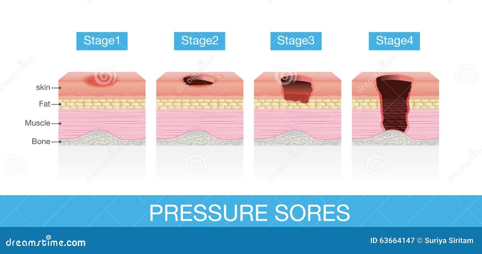 Stadien von Druck-Wunden