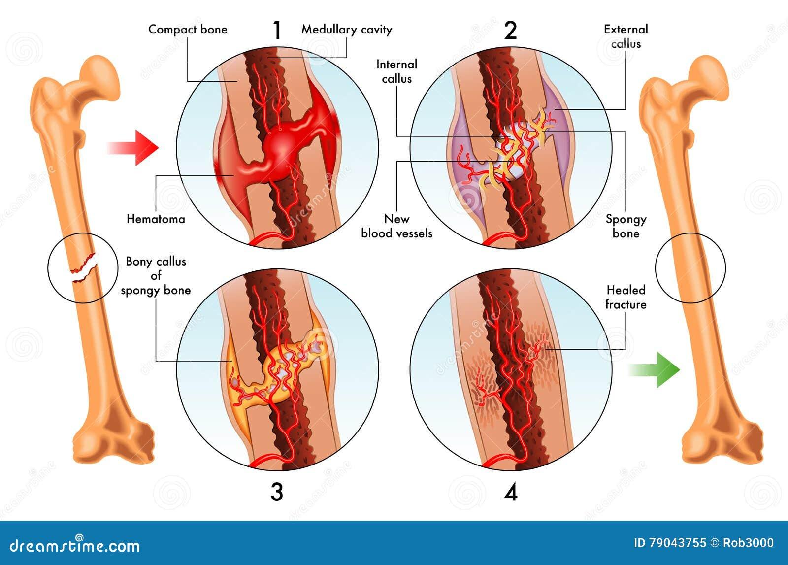 Stages Of Bone Fracture Repair Stock Vector - Illustration of bone ...