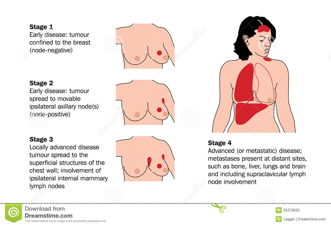 Stages Of Breast Cancer Stock Photography Image 25379632