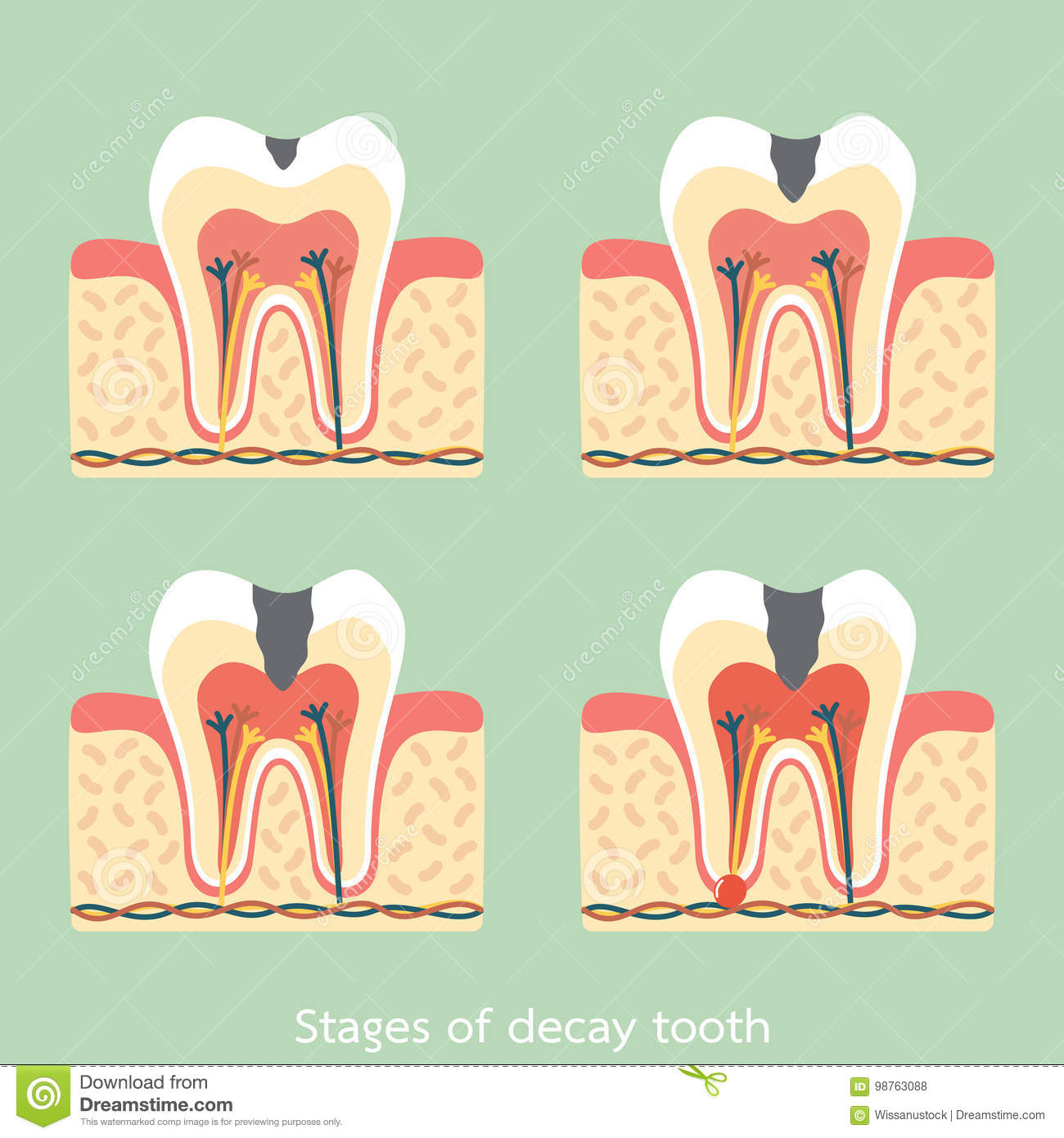 Stages Of Decay Tooth Anatomy Structure Including The Bone