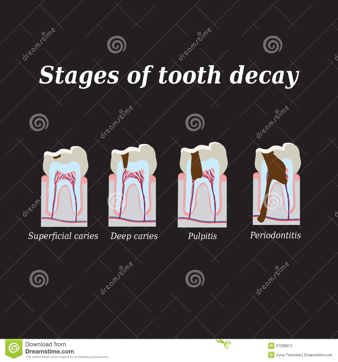 Jawbone stock illustrations 168 jawbone stock illustrations stages of development of dental caries vector illustration on a black background stock image biocorpaavc Image collections
