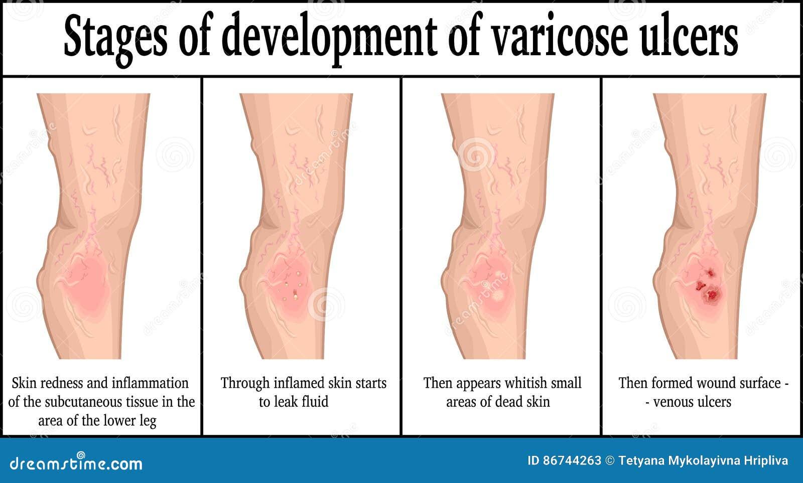 varicoză 4 etapă)