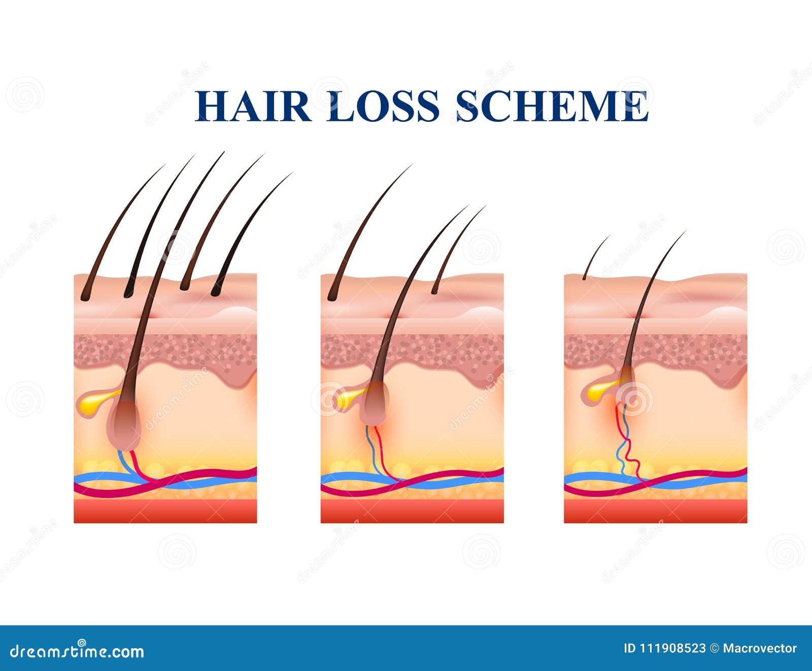 alopecia skin diagram hair loss scheme stock vector. illustration of healthy ... #10