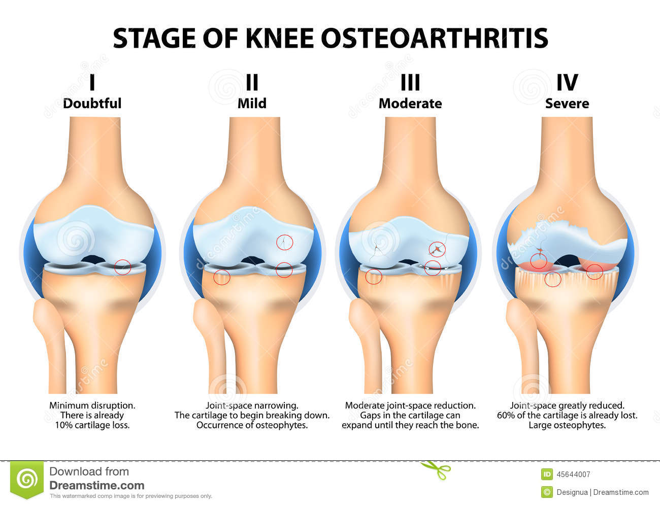 Stages Of Knee Osteoarthritis (OA). Stock Vector - Image ...
