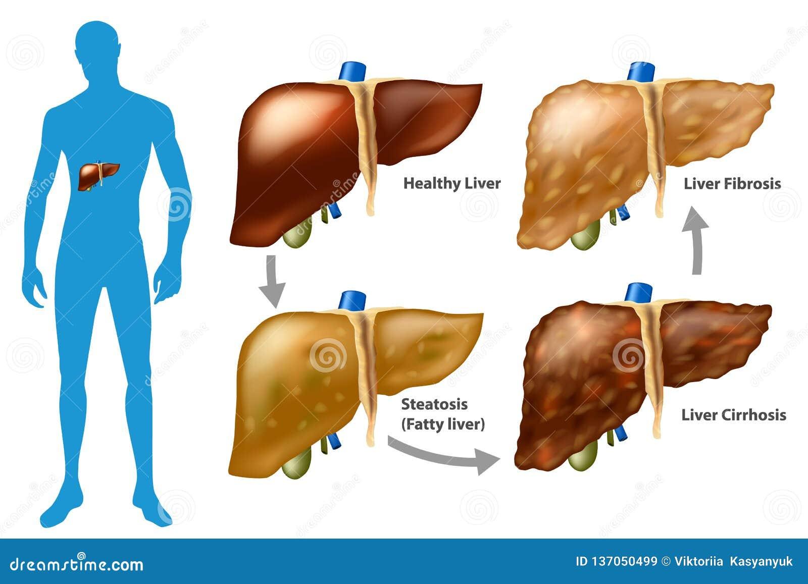 Cirrhosis Vector Illustration  Labeled Medical Diagram