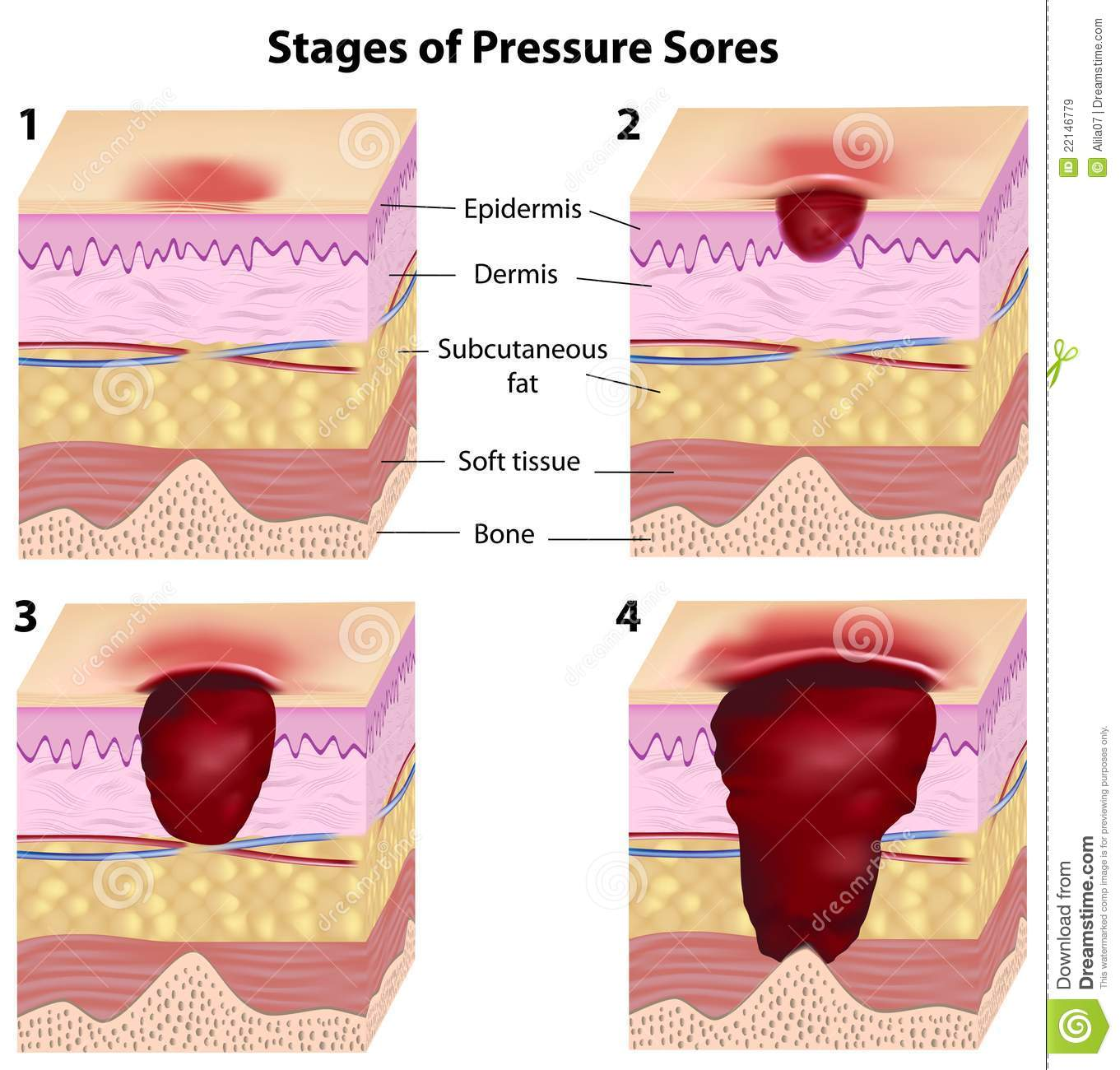 stages of pressure sores royalty free stock images - image: 22146779