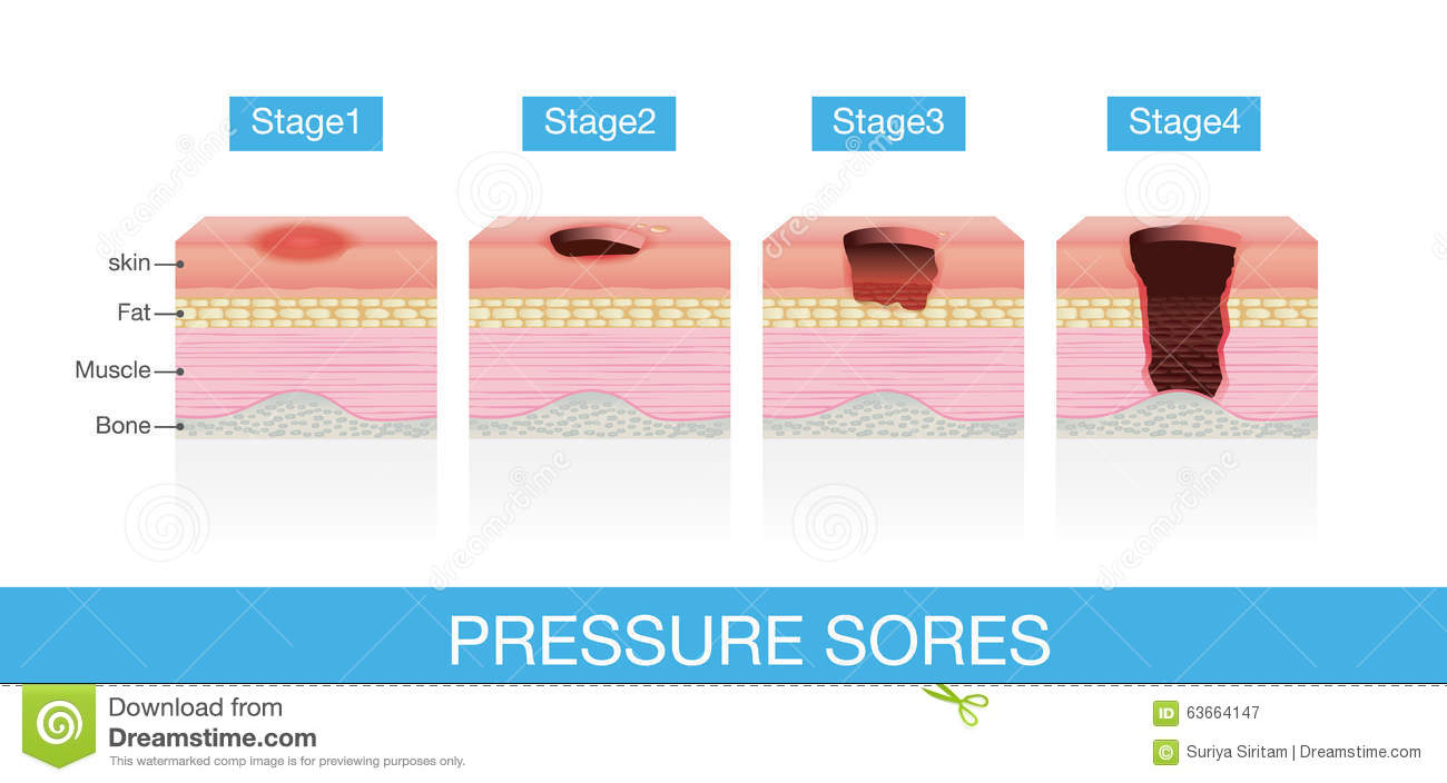 stages of pressure sores stock vector - image: 63664147