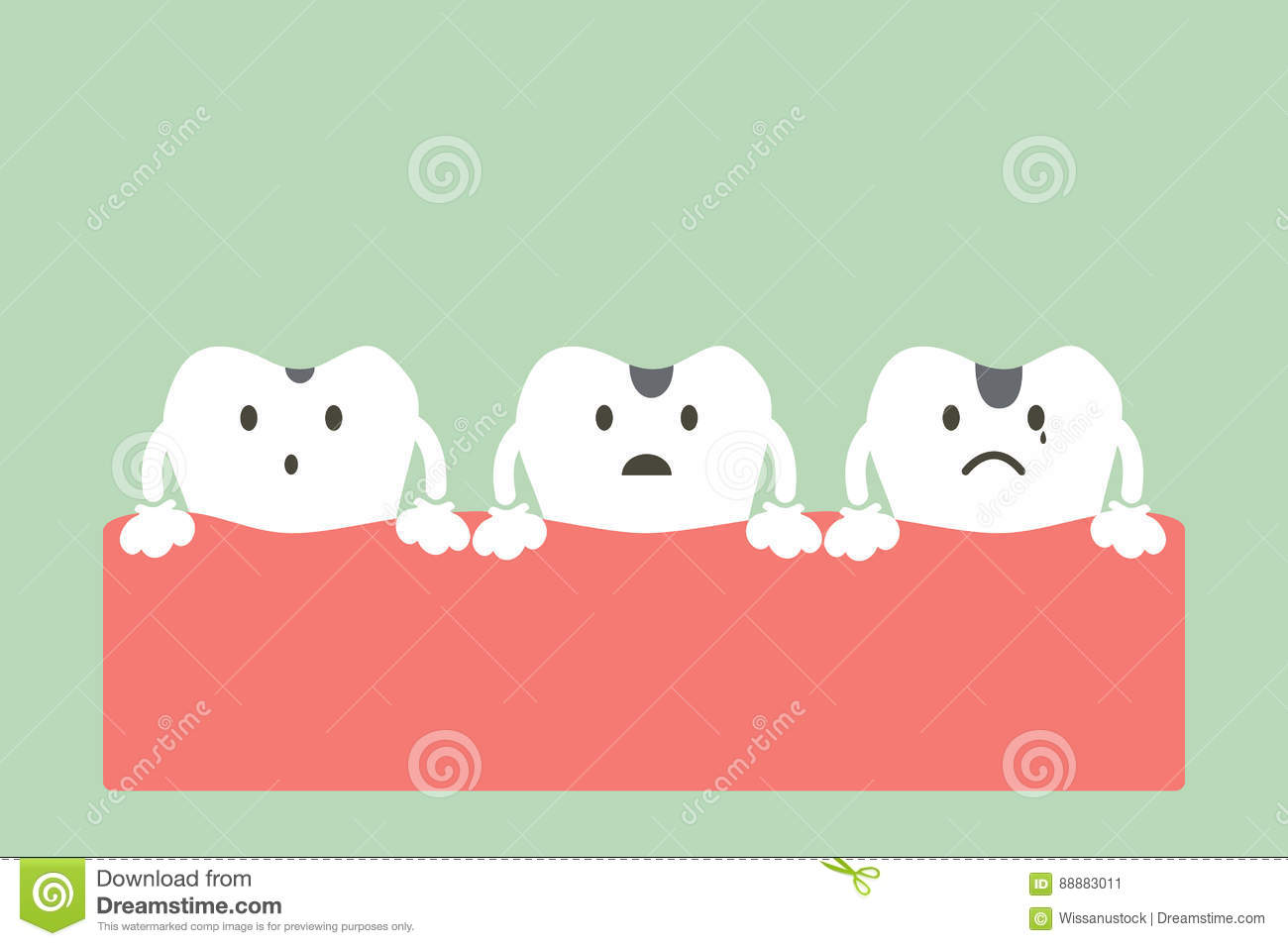 Stages Of Tooth Decay Illustration 88883011 - Megapixl