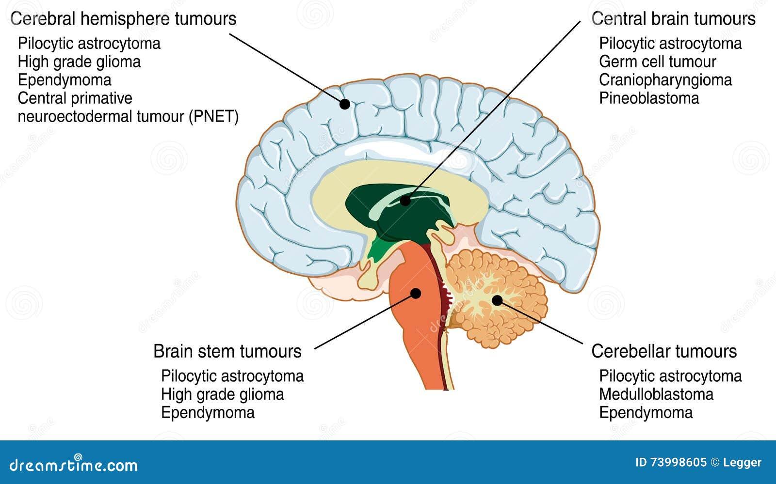 Standorte Von Verschiedenen Gehirntumoren Vektor Abbildung ...