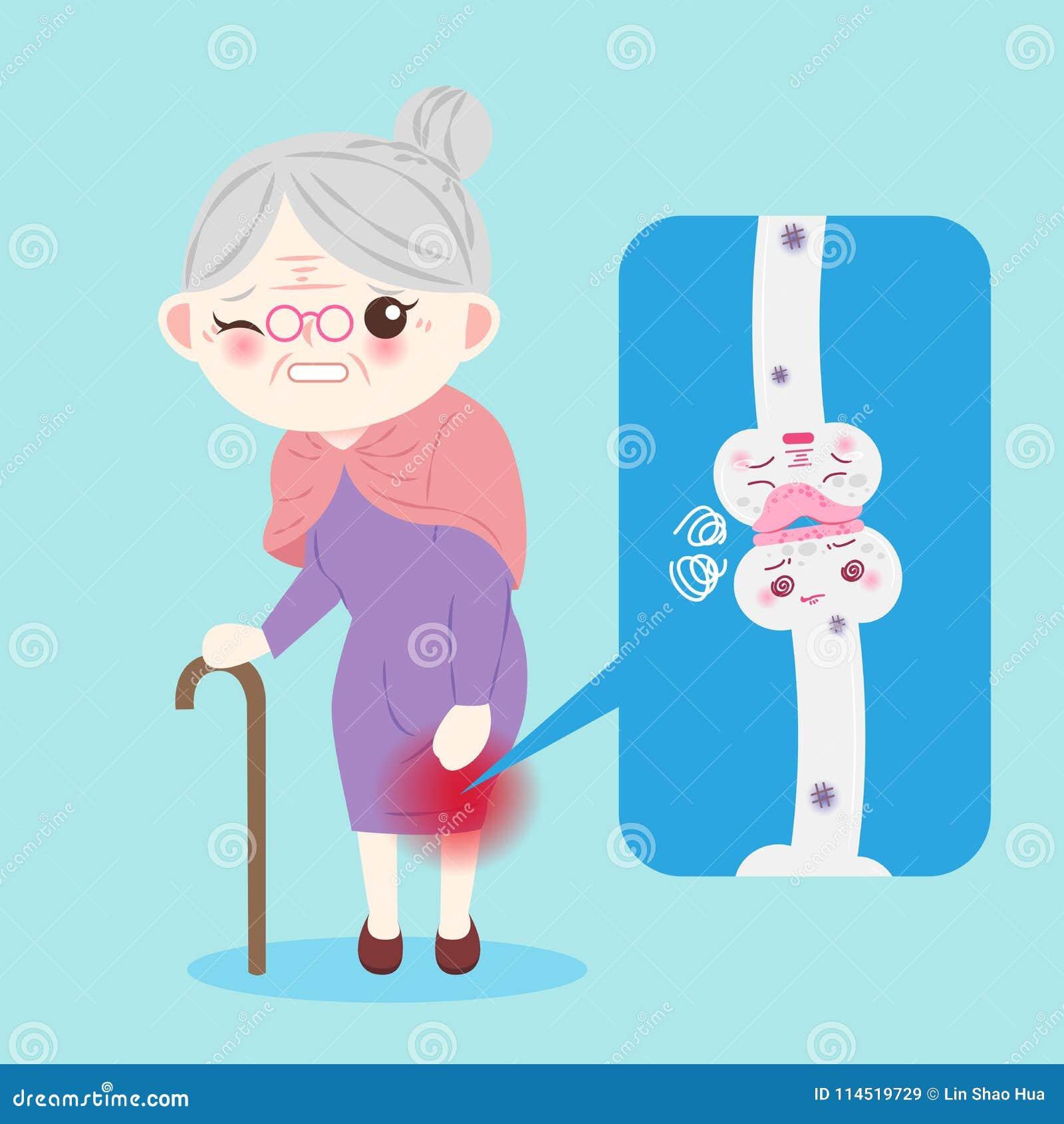Stara kobieta z osteoporosis