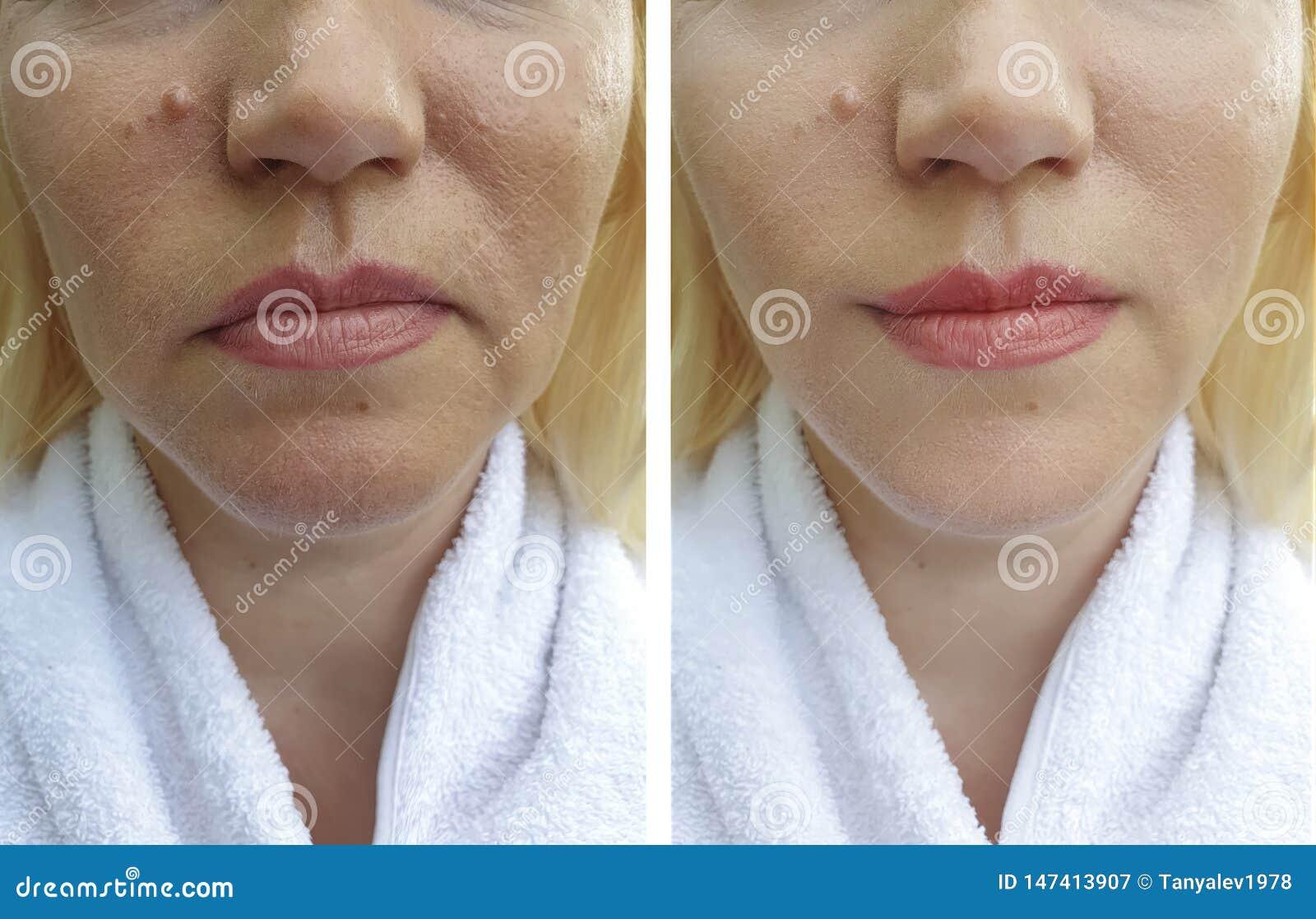 Starsza kobiety twarz marszczy podno?n? kolagen dermatologii odzyskiwania traktowania terapi? przed i po procedurami