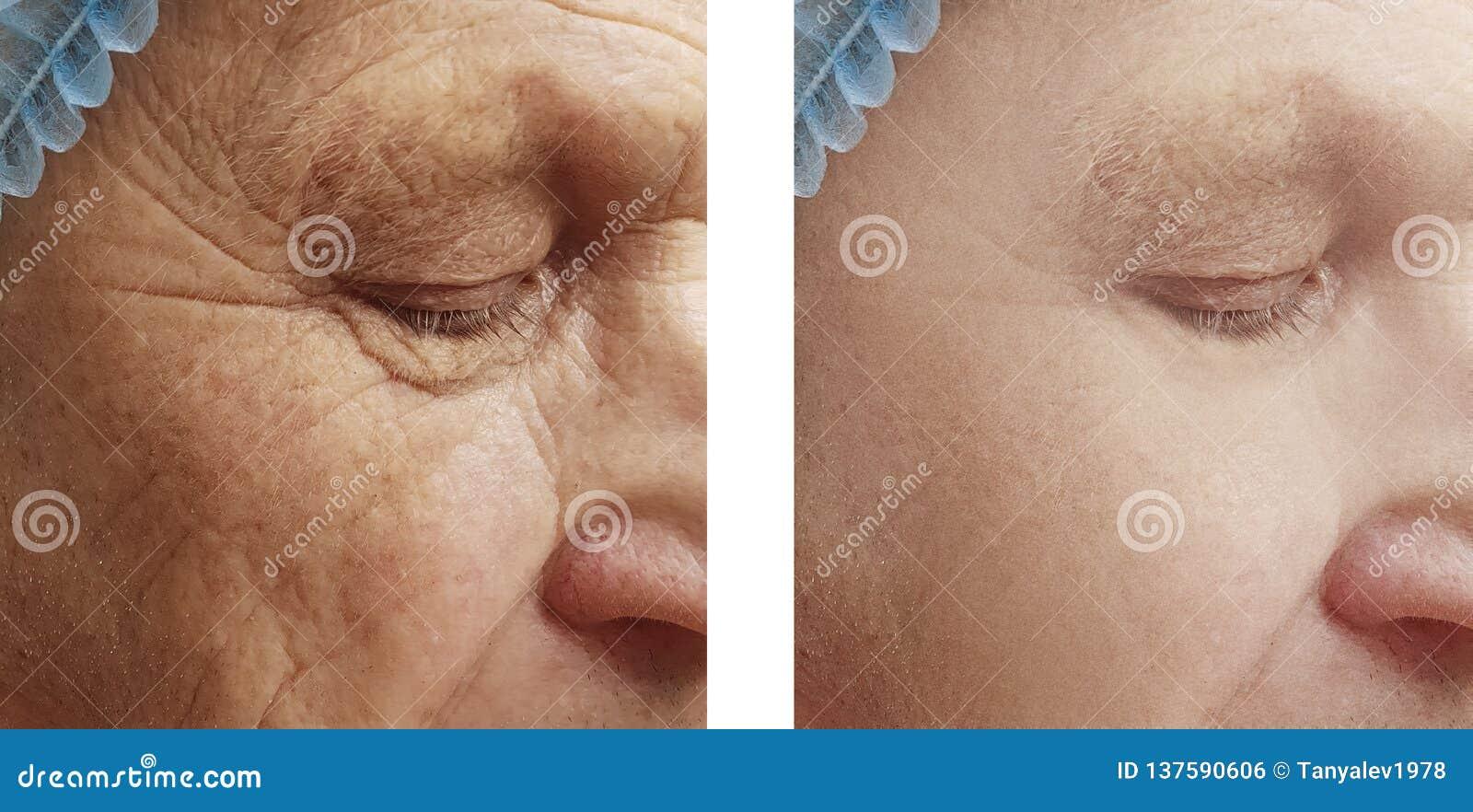 Starsze osoby obsługują przed i po zmarszczeniami