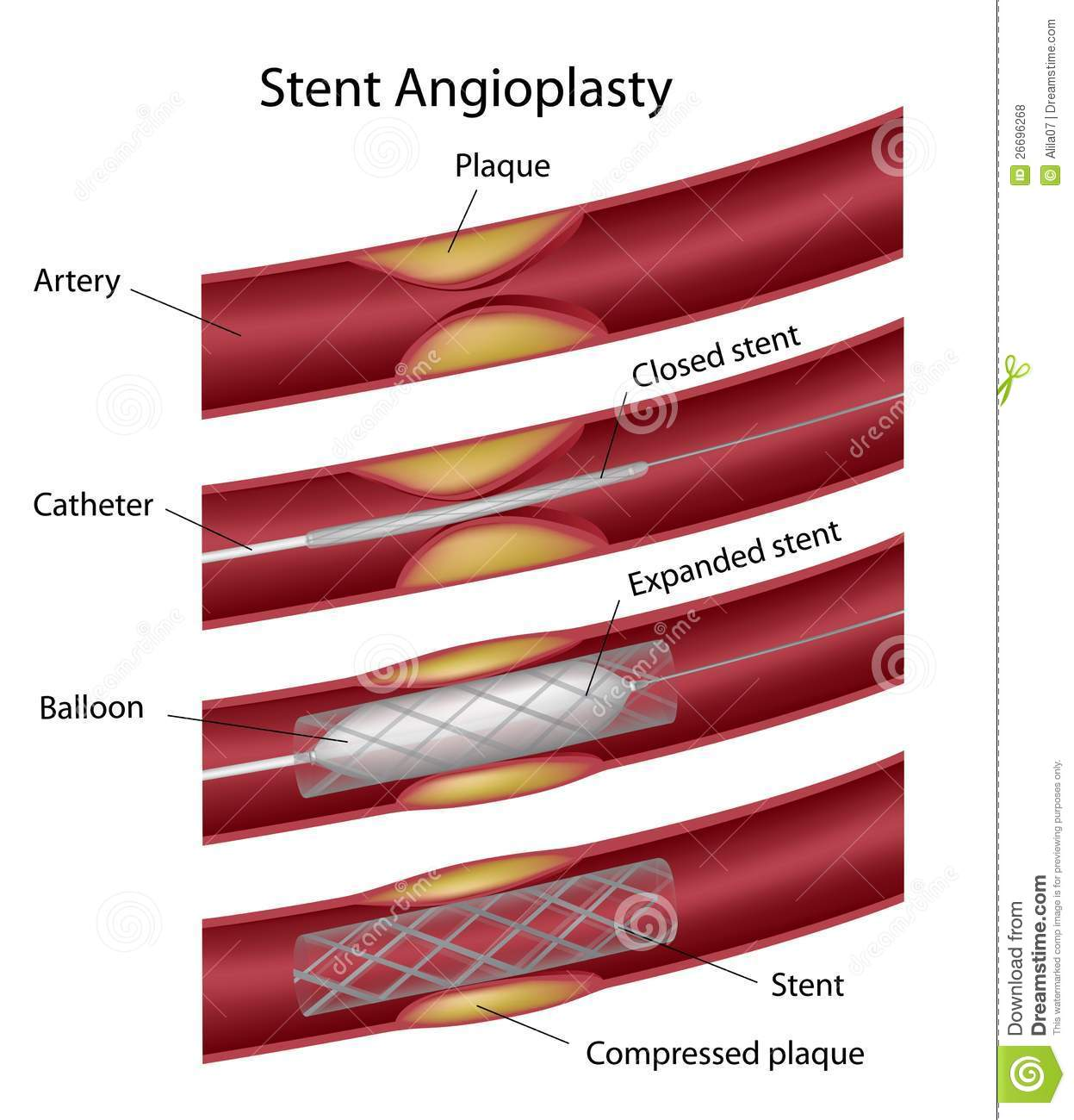 9249049 together with Organs In The Circulatory System And Their Functions Structure And Function Of Blood Vessels Openstax Cnx additionally Royalty Free Stock Photos Stent Angioplasty Image26696268 likewise Human Heart likewise 3. on blood circulatory system diagram