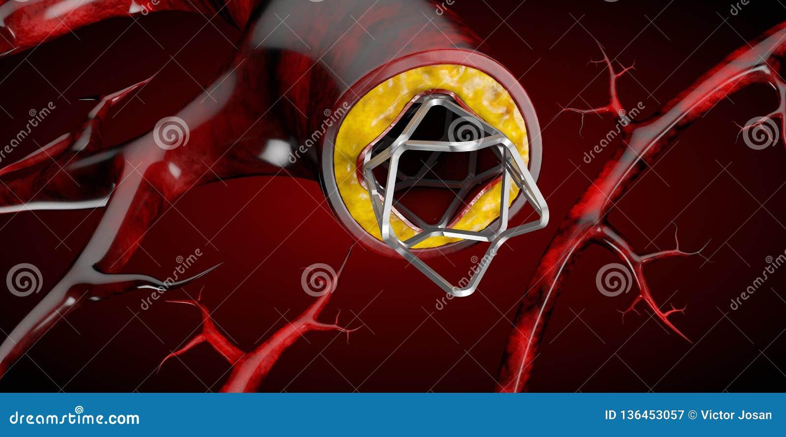 Stent medisch implant concept als het symbool 3D illustratie van de hartkwaalbehandeling