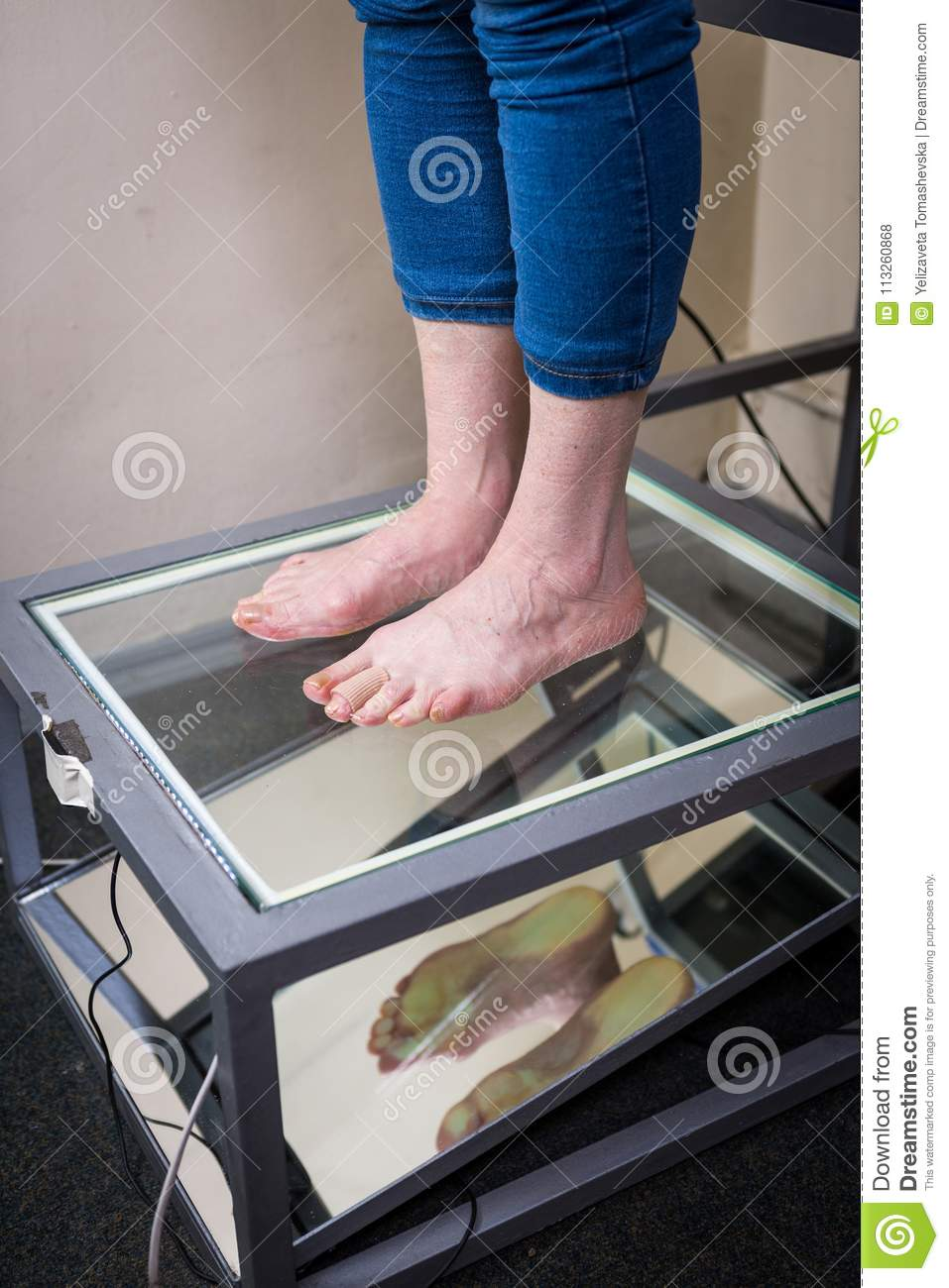 Step Digital Foot Scan, Orthotics Foot Scan for Custom Made Shoe Insoles, Posture and equilibrium analysis. Doctor, patient