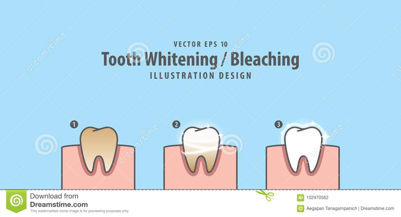 Step Of Single Tooth Whitening Bleaching And Human Gum Illustration