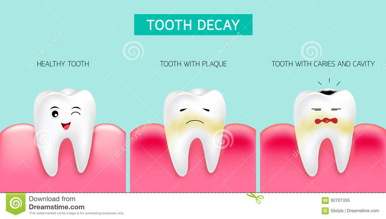 an examination of caries and decaying teeth Dental caries (tooth decay) dental caries or cavities, more commonly known as tooth decay, are caused by a breakdown of the tooth enamel this breakdown is the result.