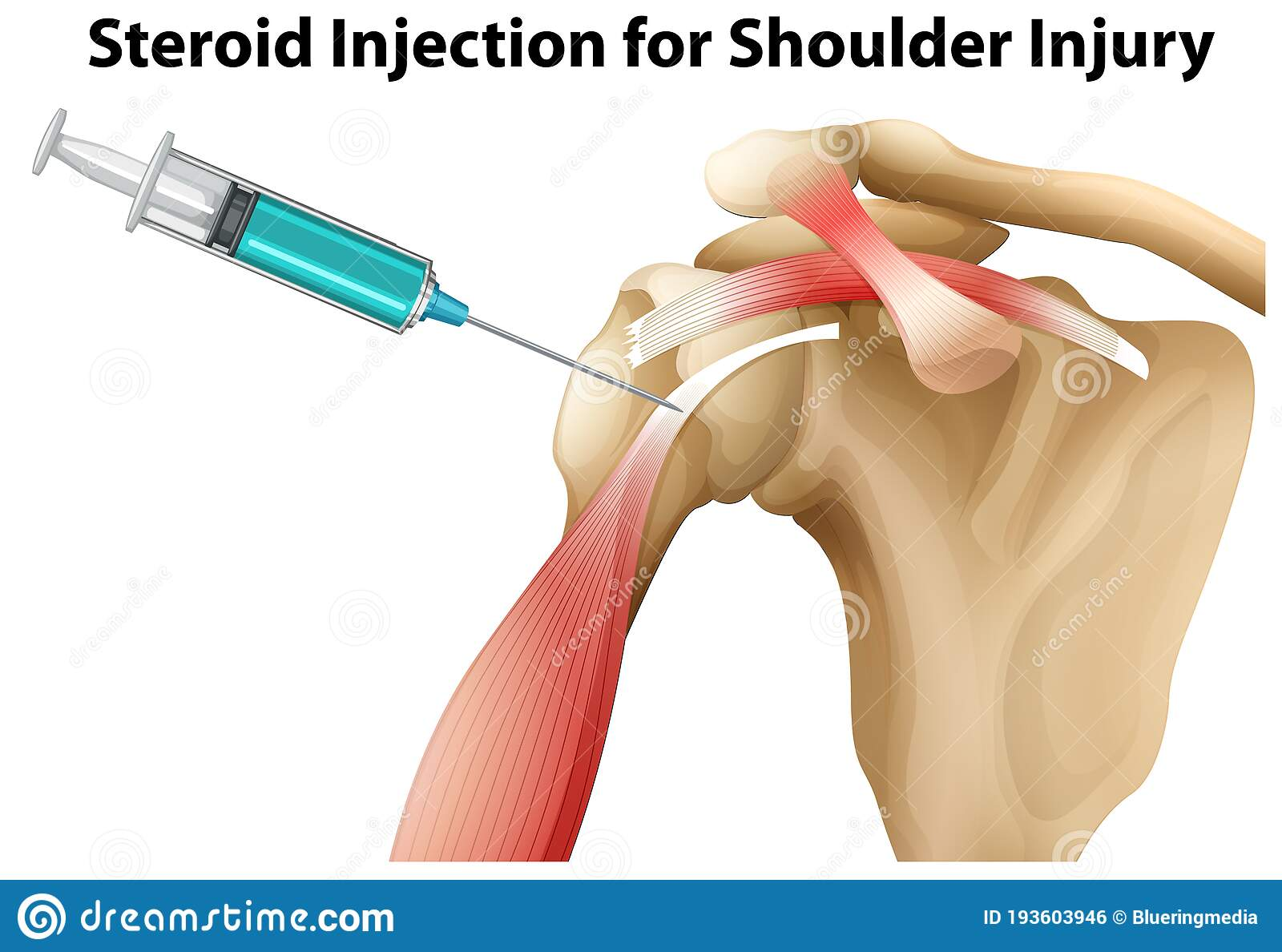 Shoulder pain after anabolic steroid injection newport steroids anavar