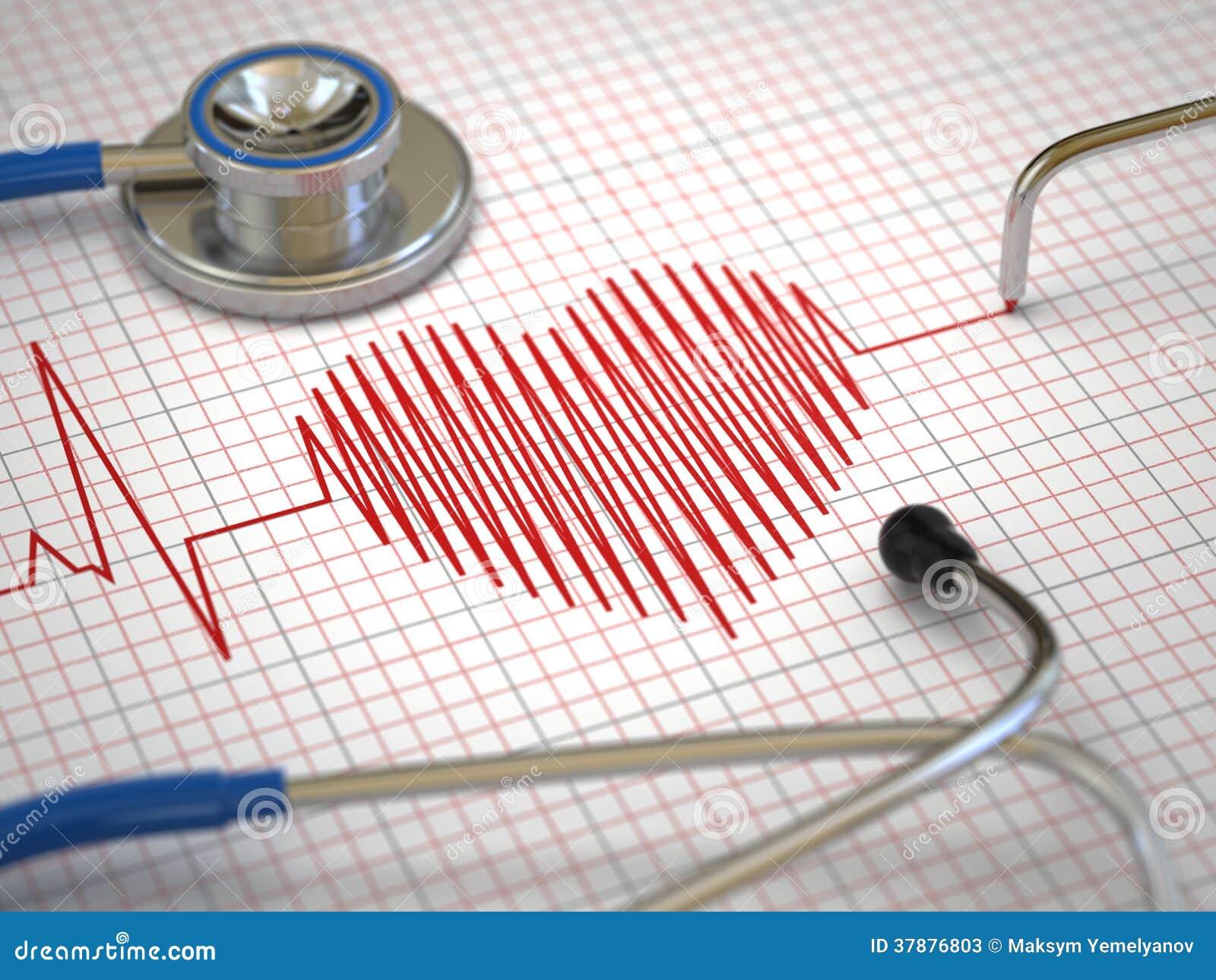 Stethoscoop en ECG-cardiogram. Geneeskundeconcept,