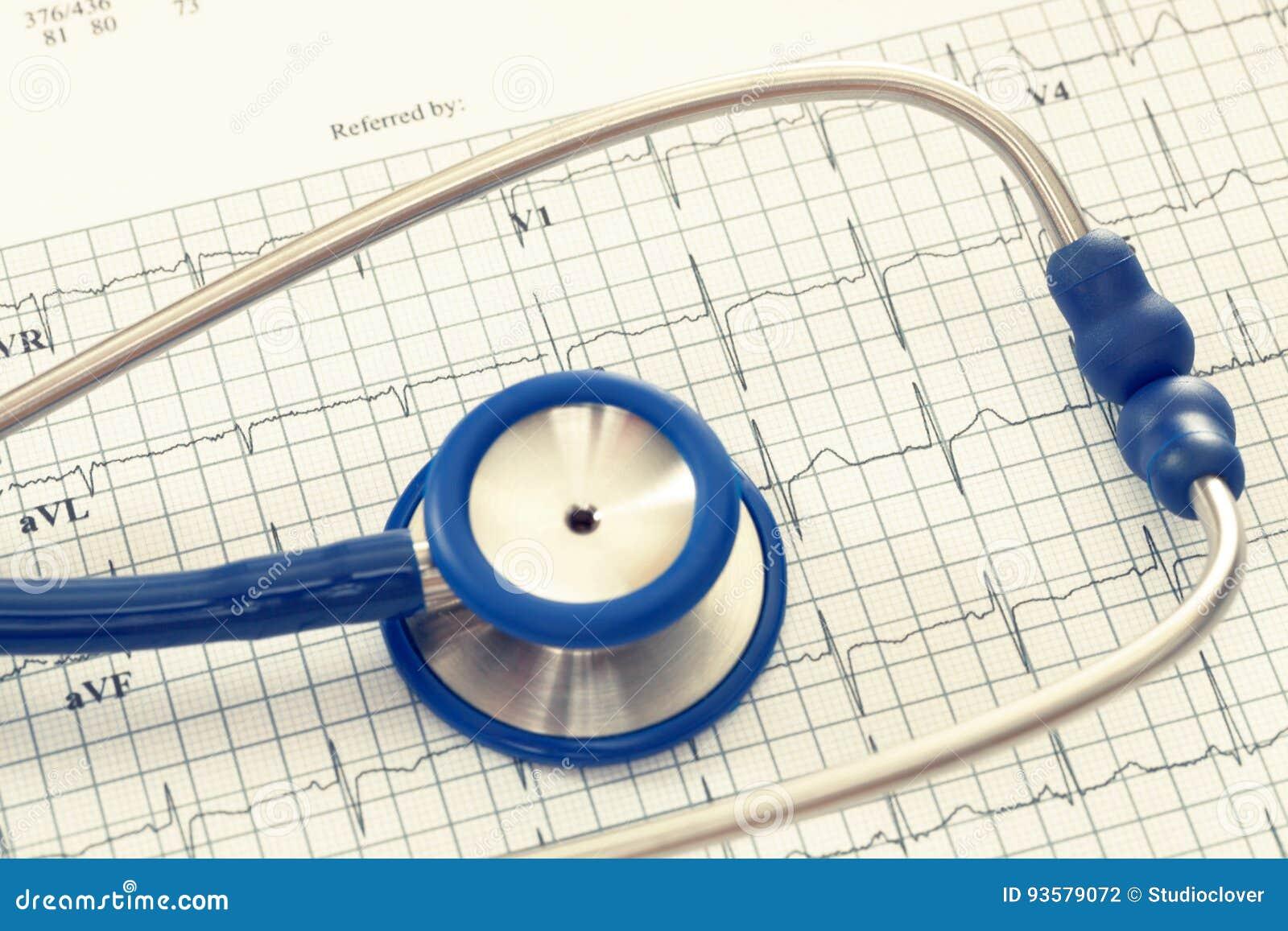 Stethoskop mit ekg Kardiogrammdiagramm Gefiltertes Bild: Kreuz verarbeiteter Weinleseeffekt