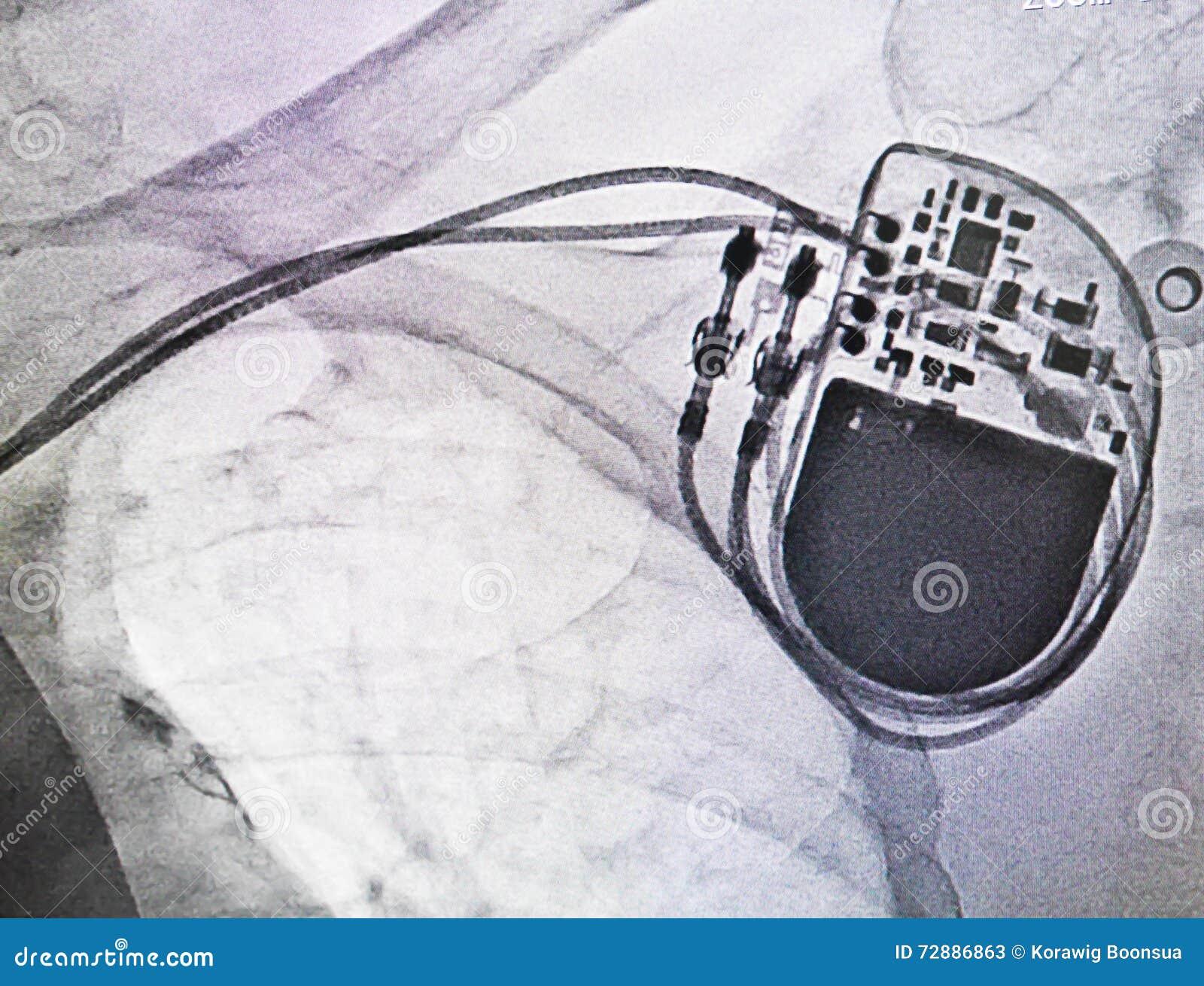 Stimulateur de rayon X