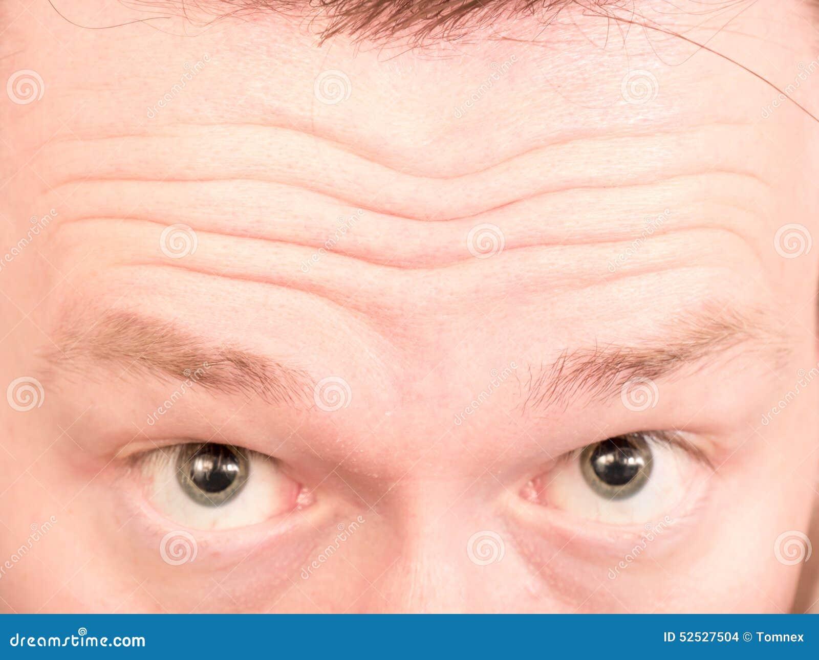 Stirnrunzeln