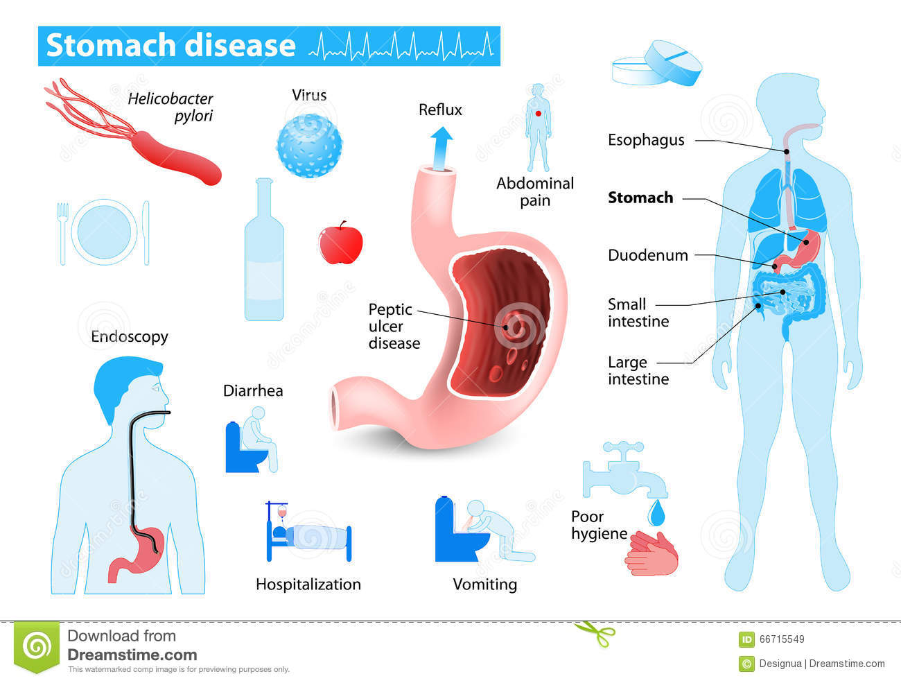 Diseases Of The Stomach  Peptic Ulcer And Gastritis