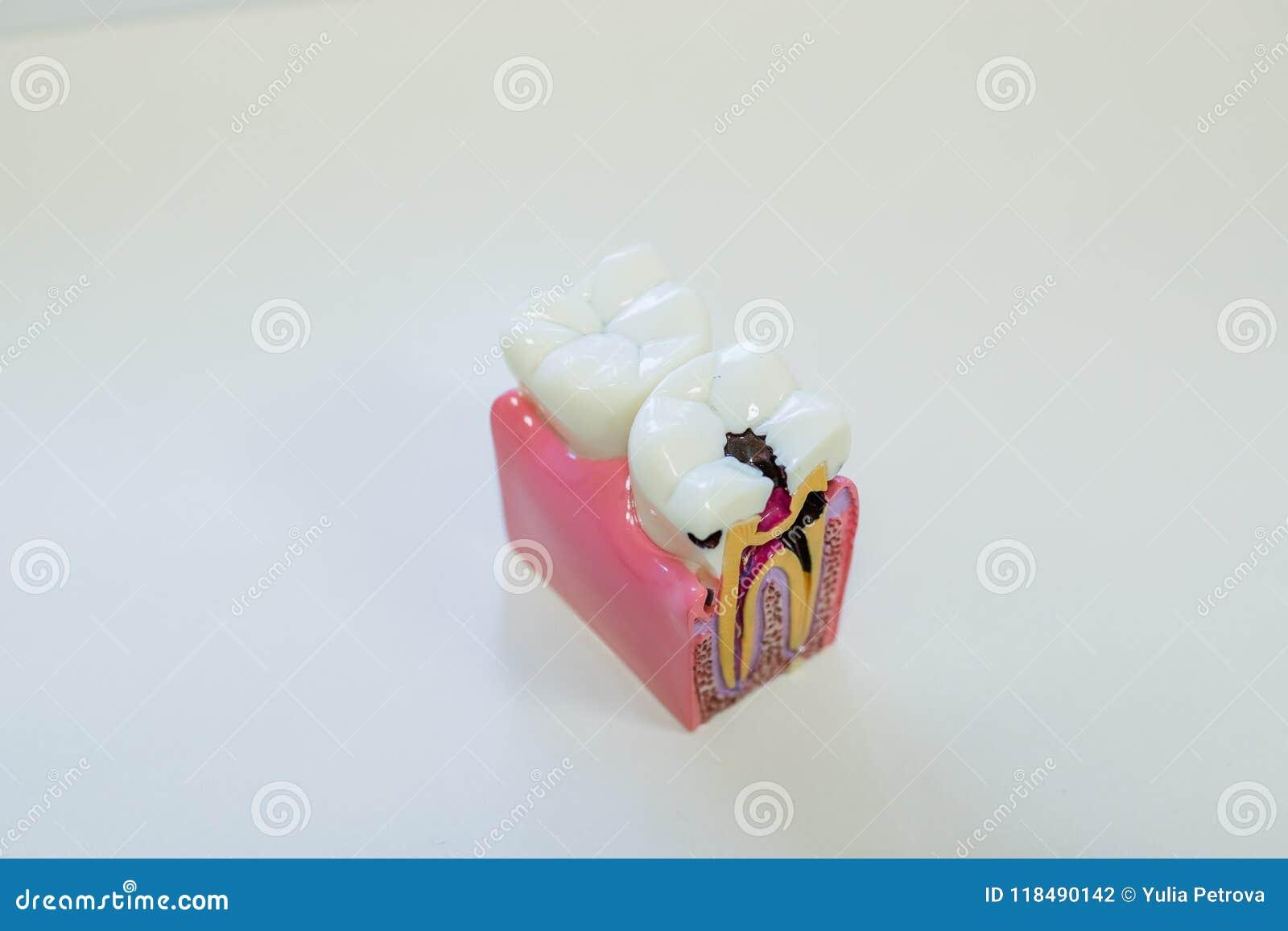 Stomatologicznej model teraźniejszości pospolita stomatologiczna choroba tak jak próchnicy, mądrość ząb Oralni zdrowie Zębu model