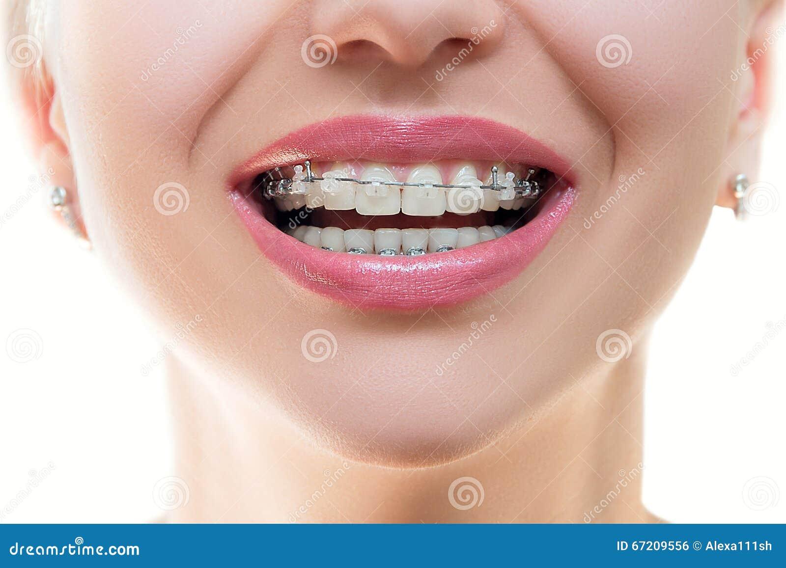 Stomatologiczni brasy na zębach