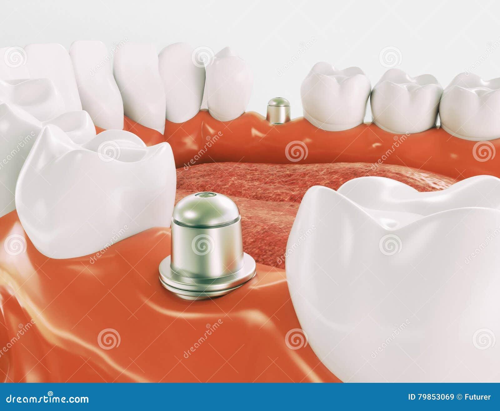 Stomatologiczny wszczep 3d rendering - serie 1 3 -