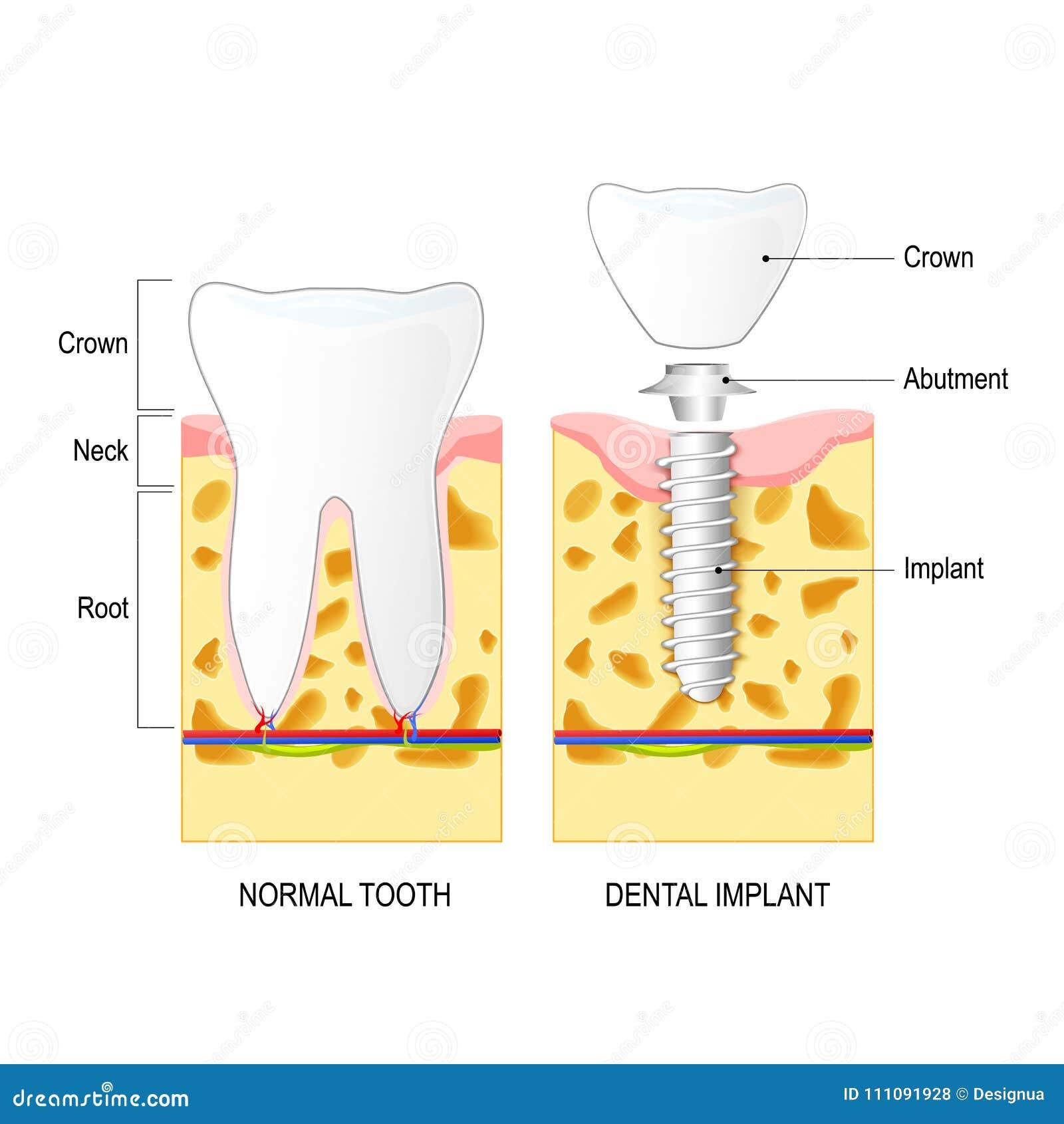 Stomatologiczny wszczep i Normalny ząb,