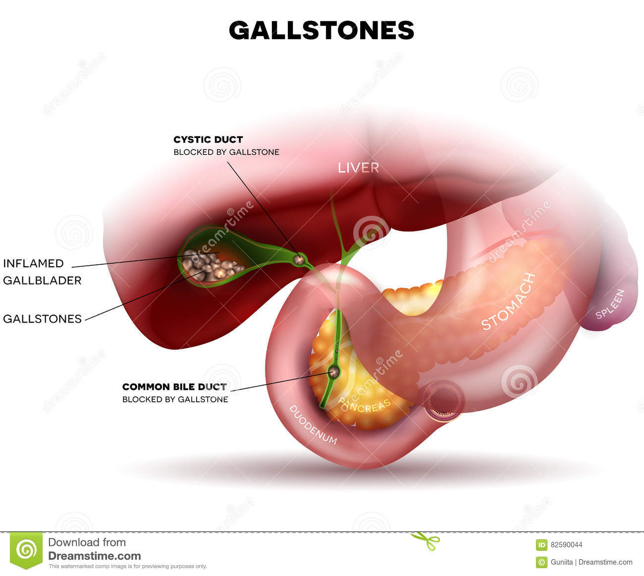 Stones In The Gallbladder And Duct Stock Vector Illustration Of
