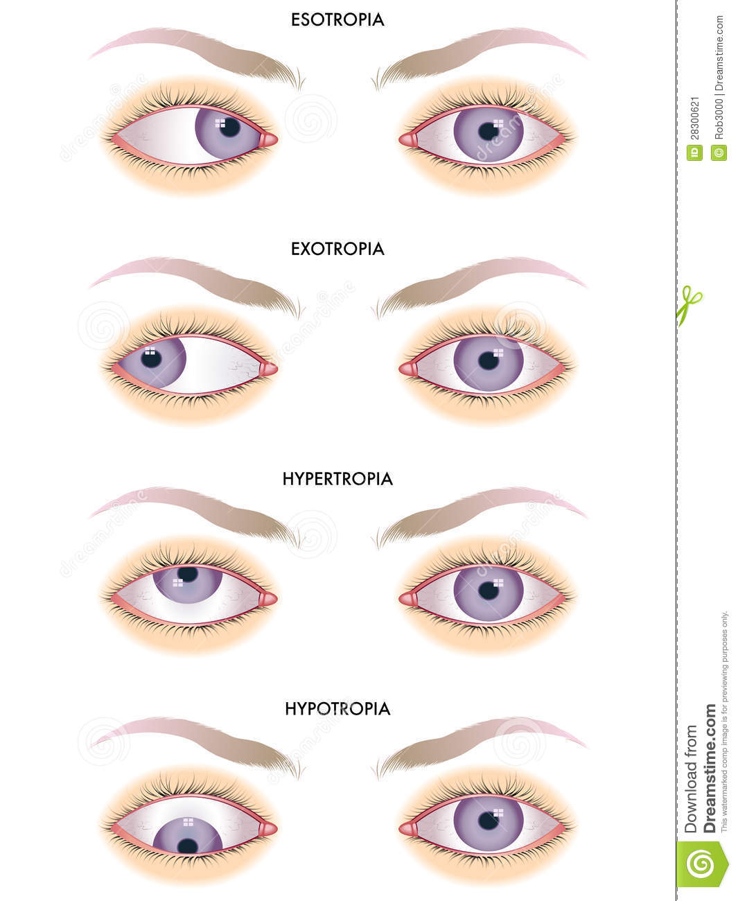 Medical illustration of the effects of the strabismus.
