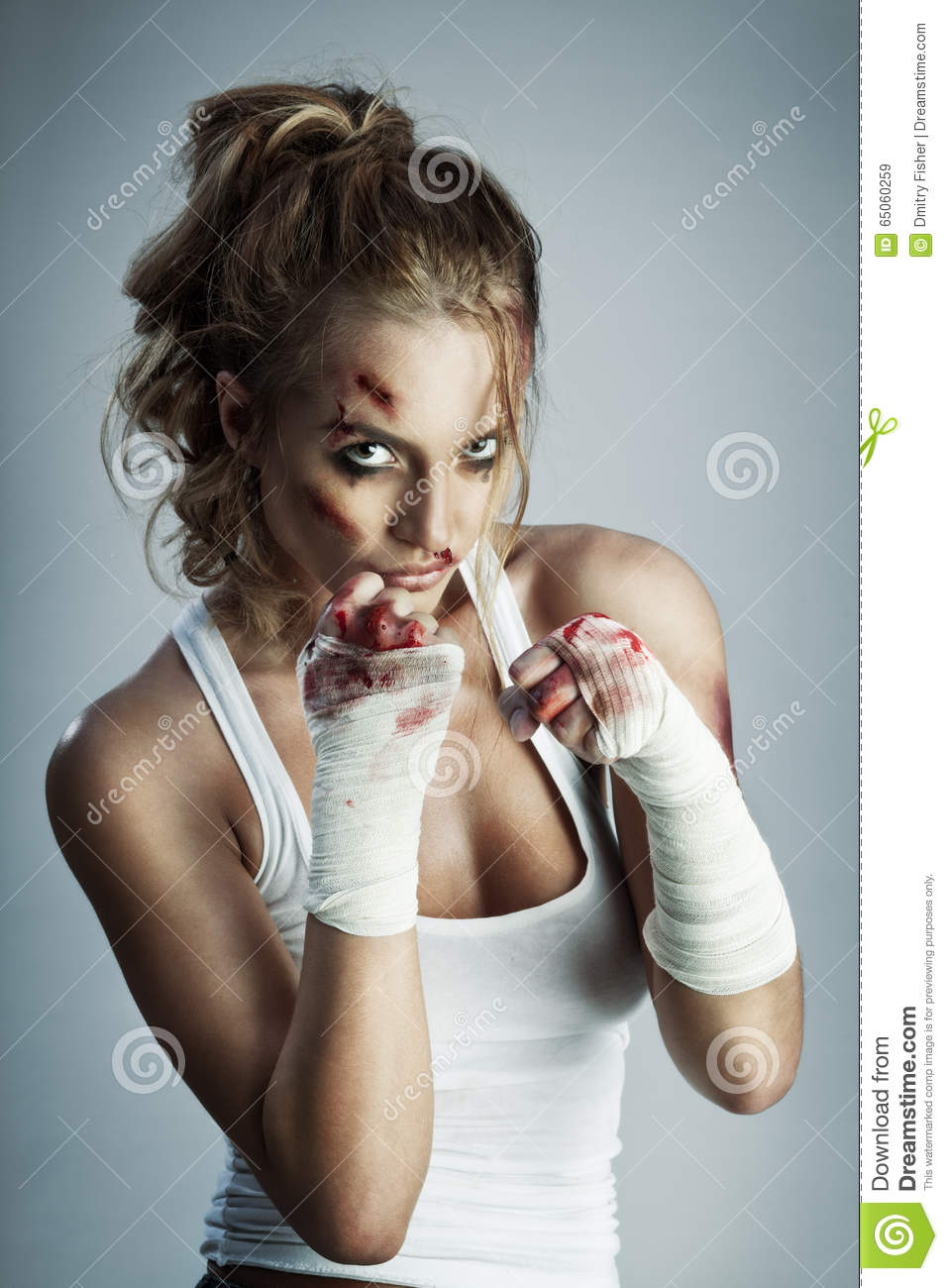 Female Boxing Bruises Wiring Diagrams Authorzj Keyword Voltage Control Oscillator Circuit Fromseekic Images Gallery