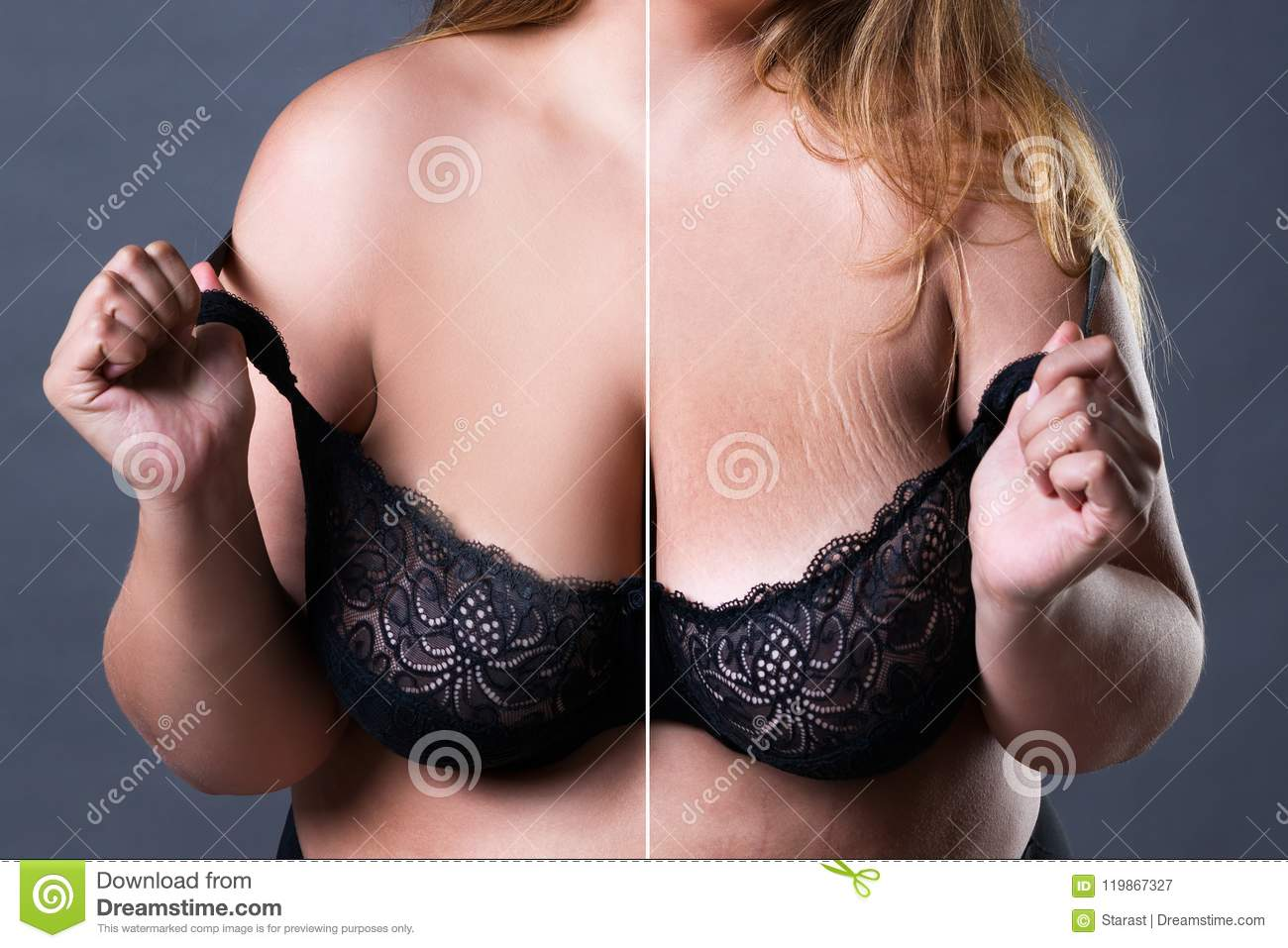 Stretch marks on a large natural breasts, obese woman with big boobs,  overweight female